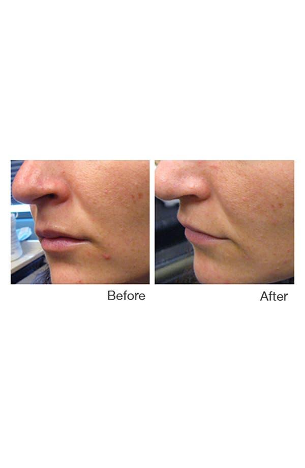 Alternate Image 2  - CLARO IPL Acne Treatment Device