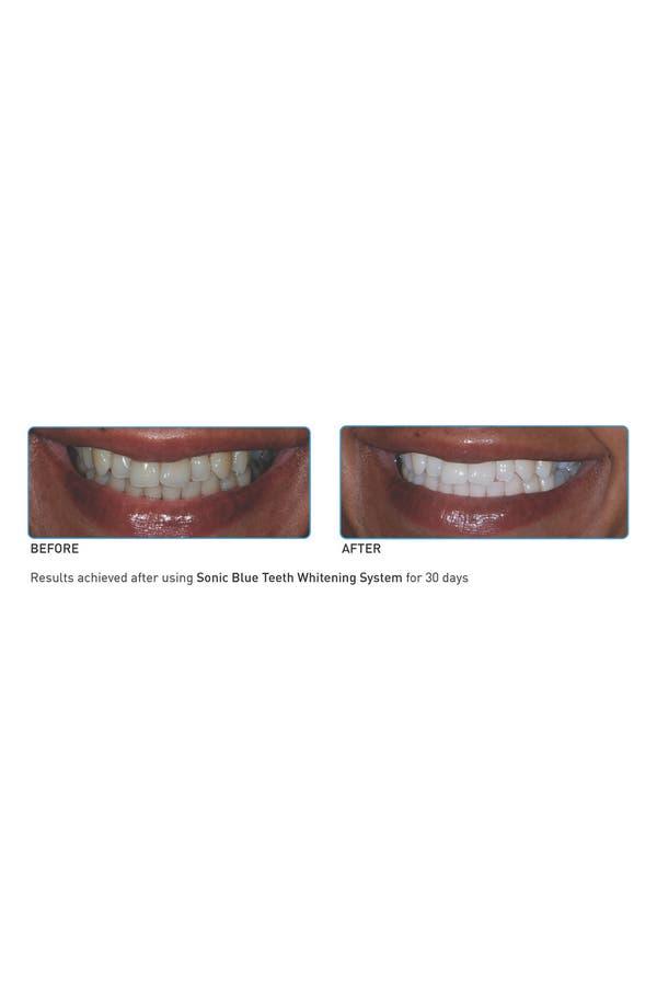 Alternate Image 3  - GO SMiLE® 'Sonic Blue' Teeth Whitening System