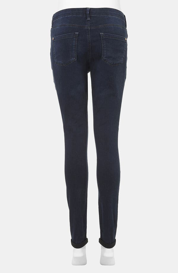 Alternate Image 3  - Topshop 'Leigh' Skinny Maternity Jeans