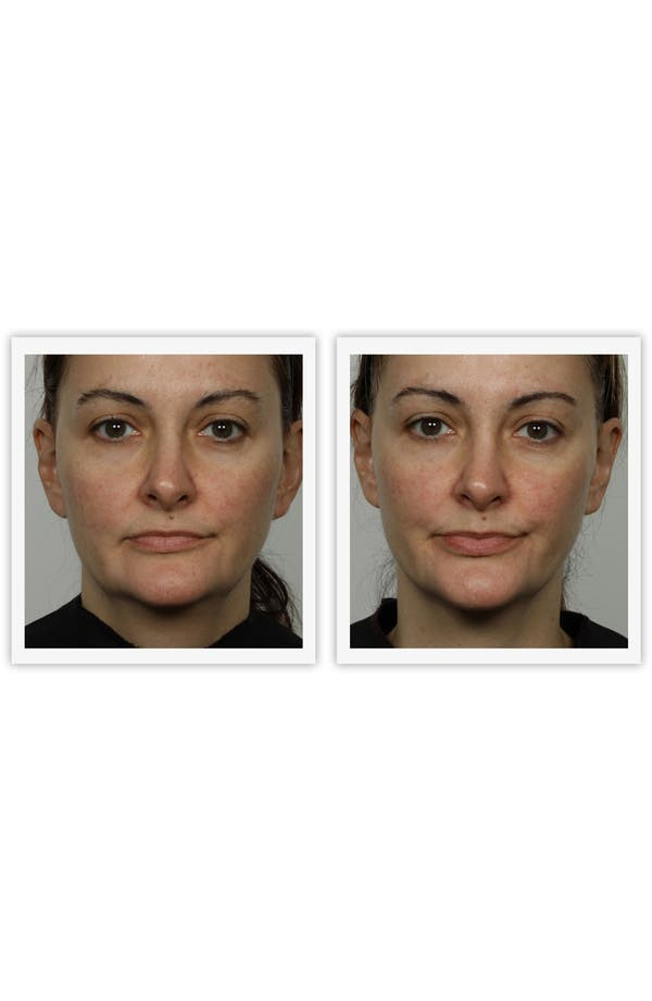 Alternate Image 4  - NuFACE® 'Trinity' Facial Toning Device