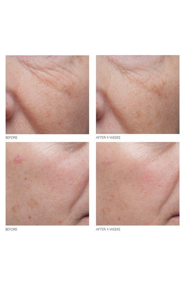 Alternate Image 6  - Kate Somerville® 'Age Arrest' Wrinkle Reducing Cream
