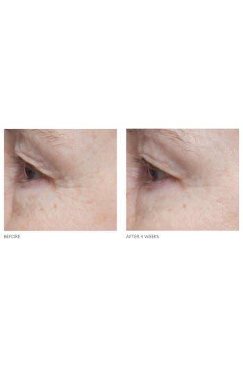 Alternate Image 5  - Kate Somerville® 'Age Arrest' Wrinkle Reducing Cream