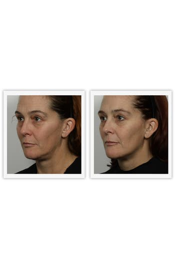 Alternate Image 4  - NuFACE® 'Trinity - Petal Pink' Facial Toning Device (Nordstrom Exclusive)