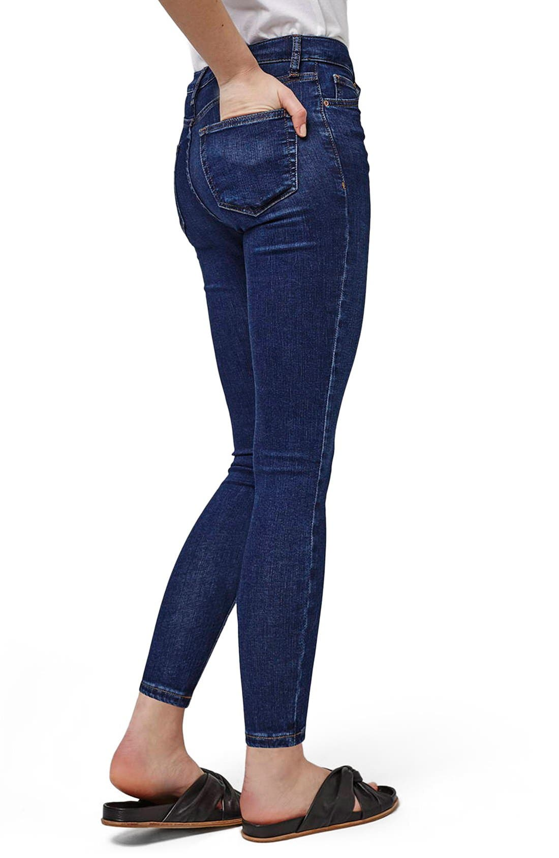 Alternate Image 3  - Topshop 'Jamie' High Rise Ankle Skinny Jeans (Petite)