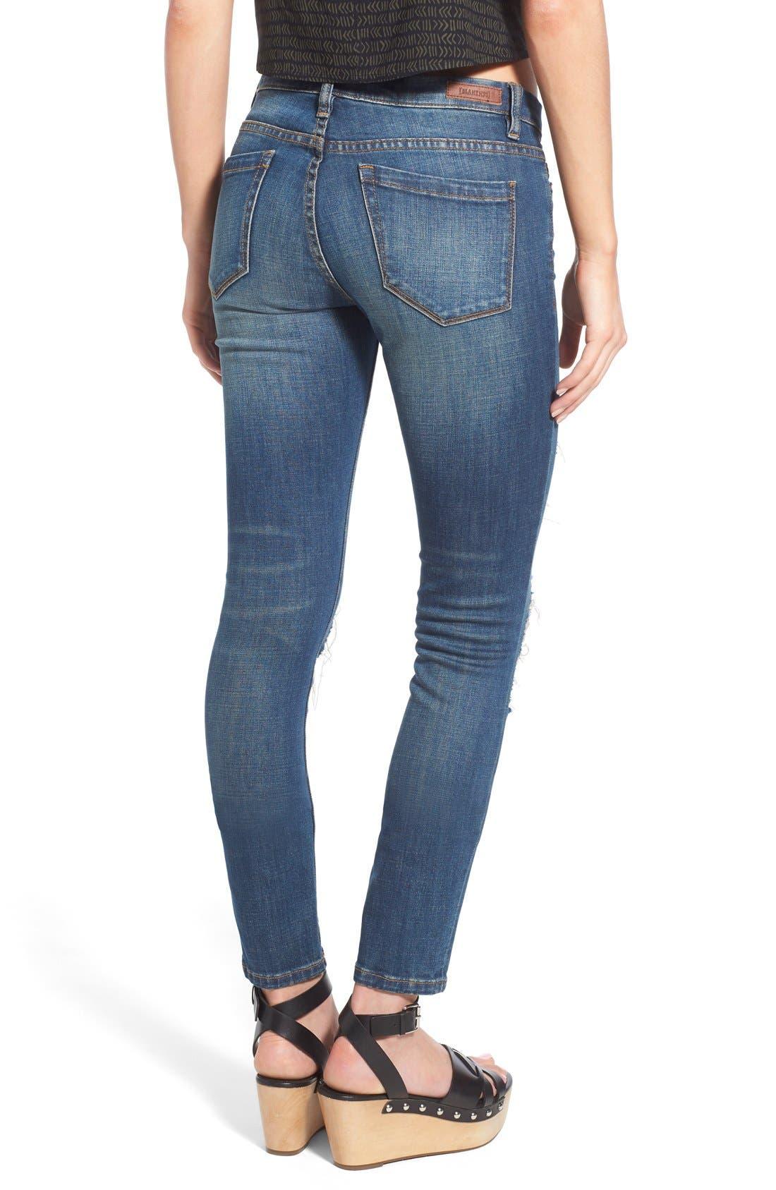 Alternate Image 2  - BLANKNYC Distressed Skinny Jeans