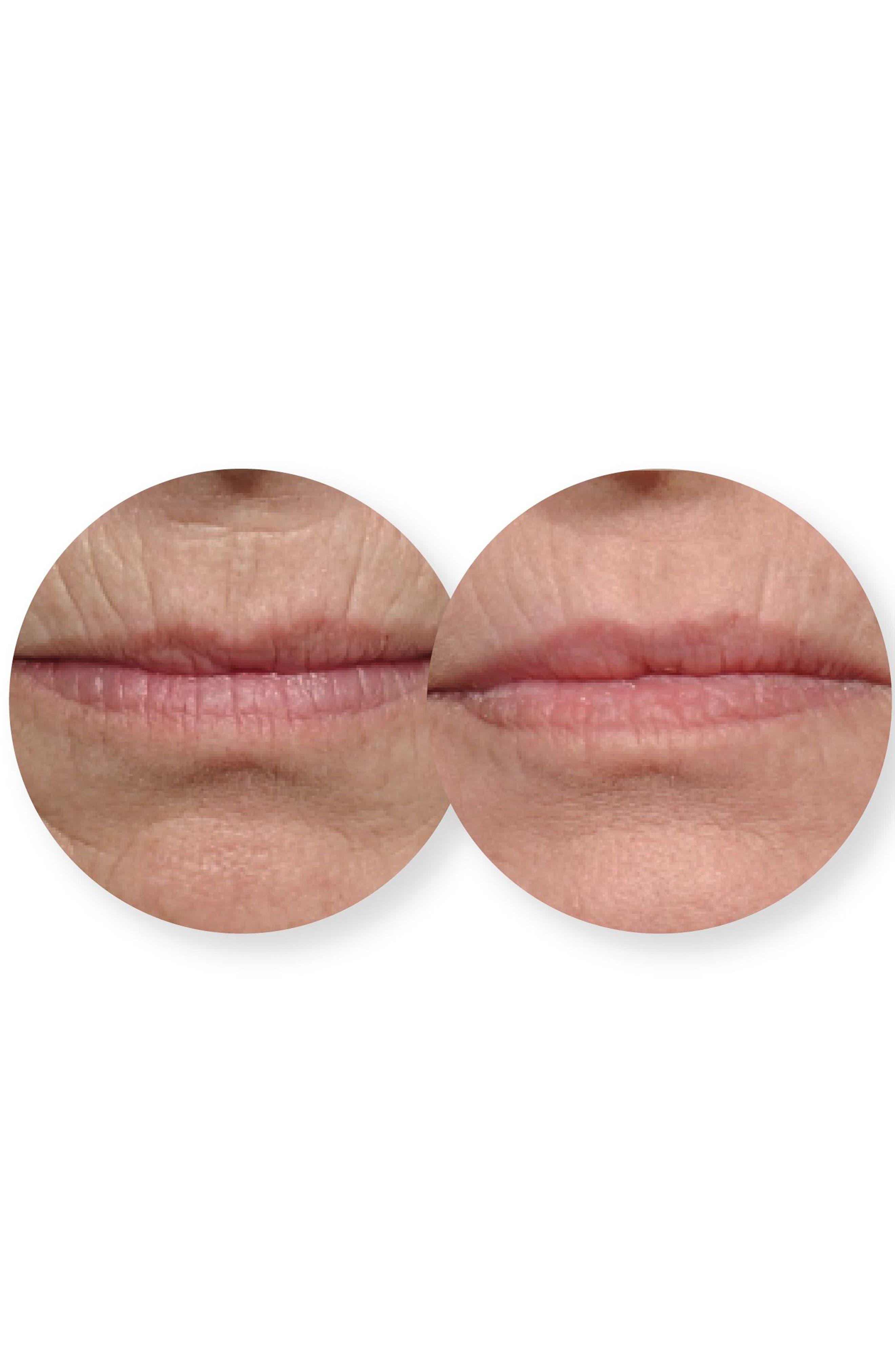 Alternate Image 4  - Dermovia Lace Your Face Rejuvenating Collagen Compression Facial Mask (Nordstrom Exclusive)