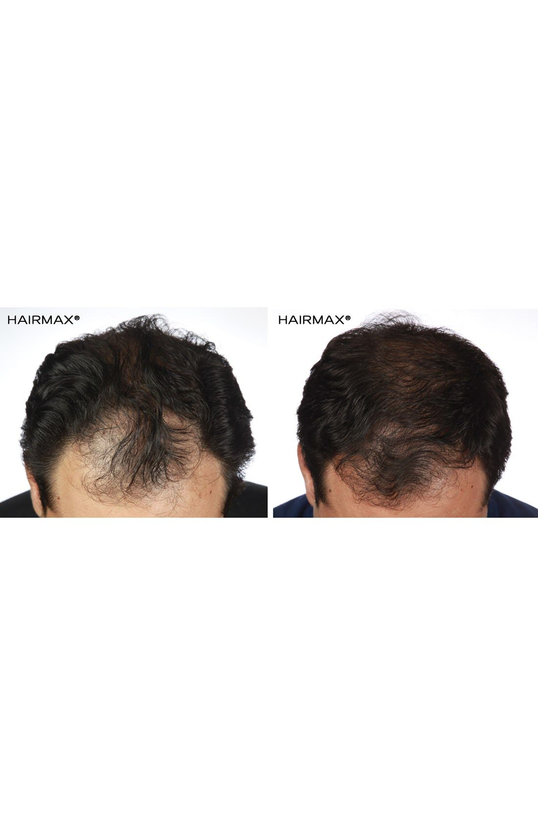 Alternate Image 4  - HAIRMAX® 'LaserComb Advanced 7' Hair Growth Device