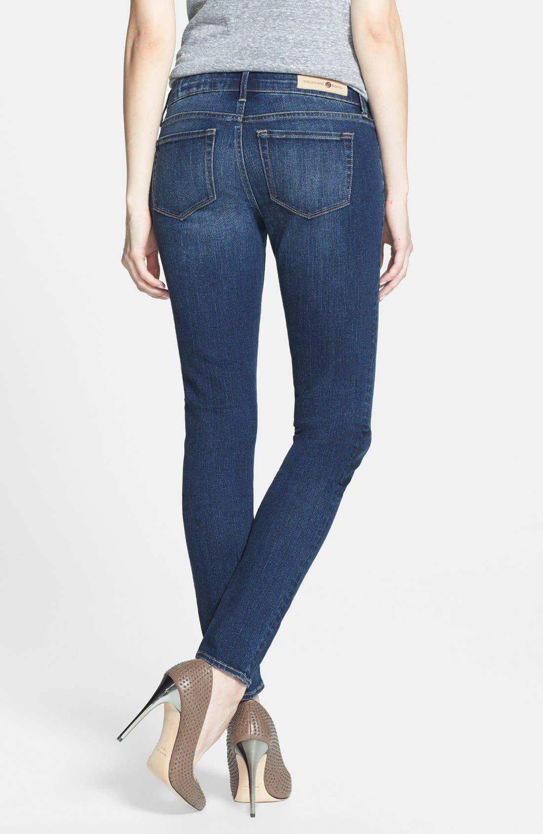 Alternate Image 2  - Treasure&Bond Skinny Jeans (Medium)