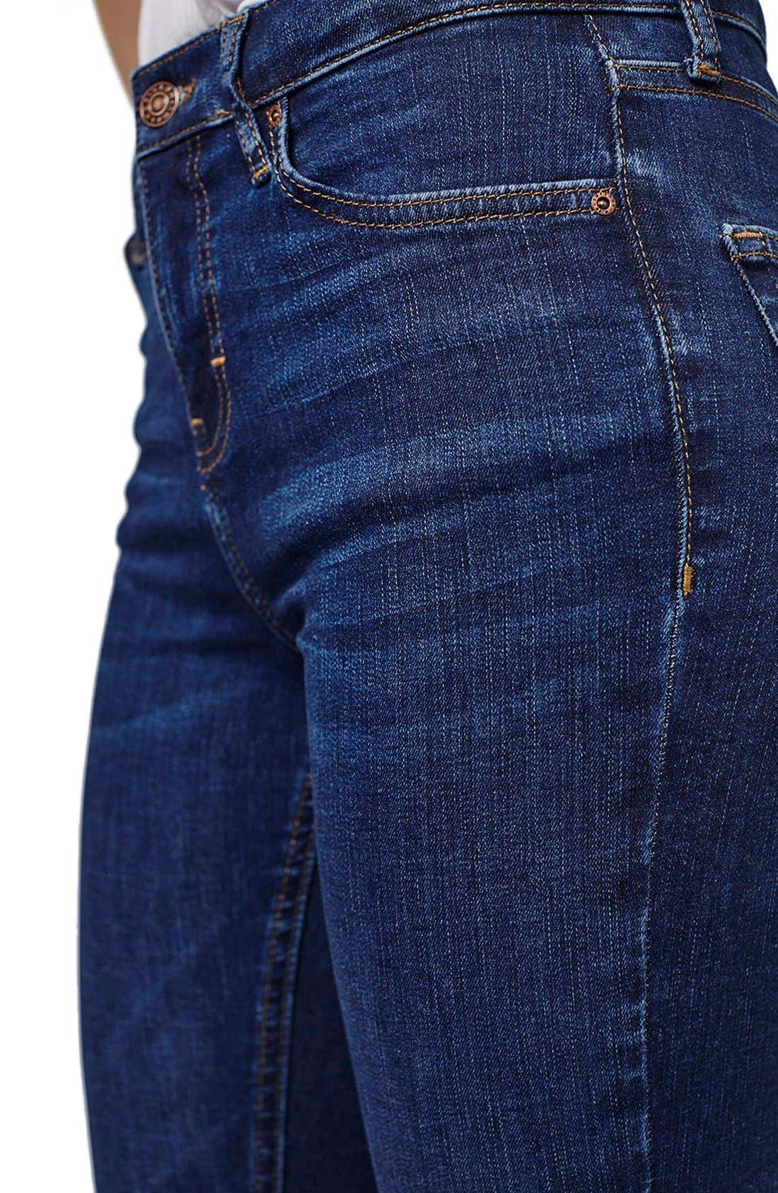Alternate Image 5  - Topshop 'Jamie' High Rise Ankle Skinny Jeans (Petite)