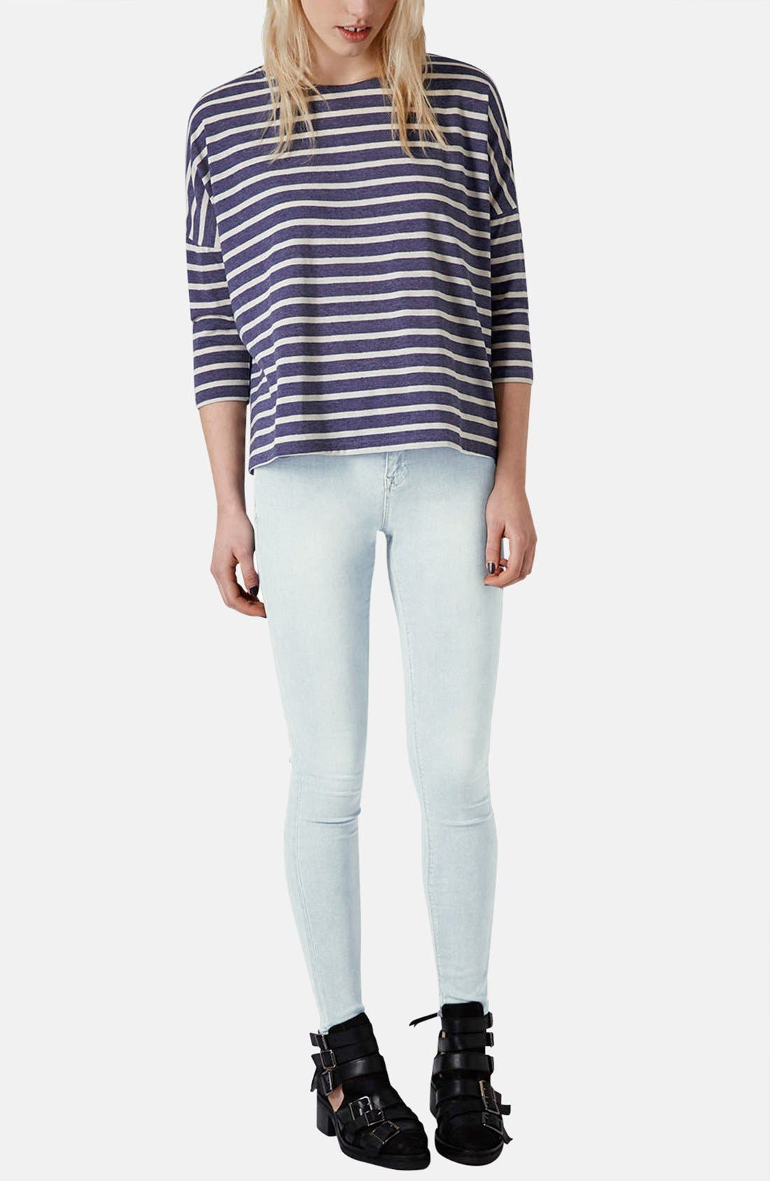 Alternate Image 5  - Topshop Moto 'Leigh' Bleach Skinny Jeans (Regular & Short) (Light Denim)