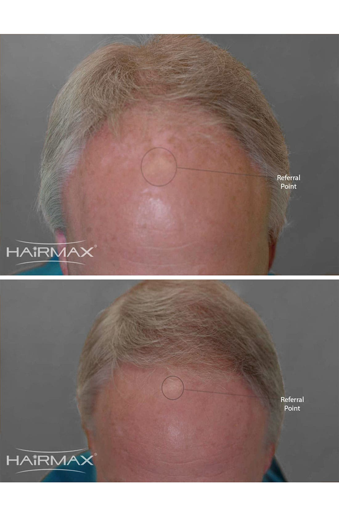 Alternate Image 2  - HAIRMAX® 'LaserComb Professional' Hair Growth Device