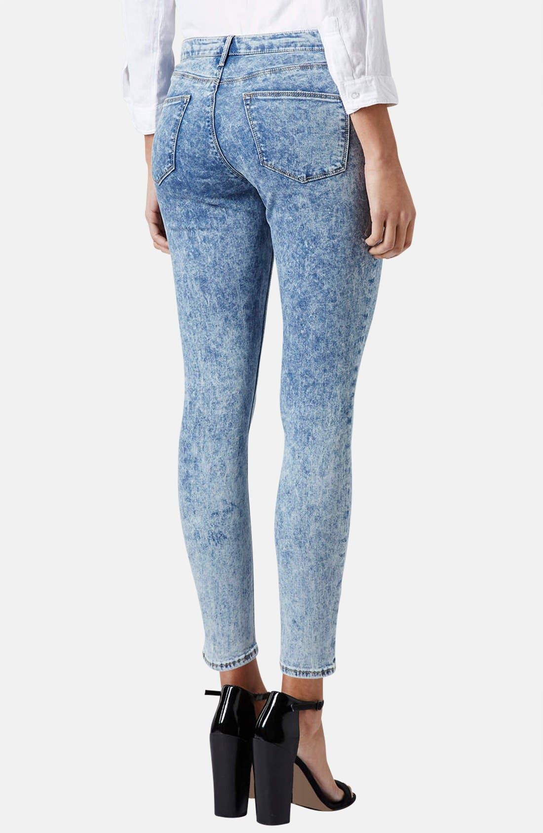 Alternate Image 2  - Topshop Moto 'Leigh' Acid Wash Skinny Jeans (Light Denim) (Petite)