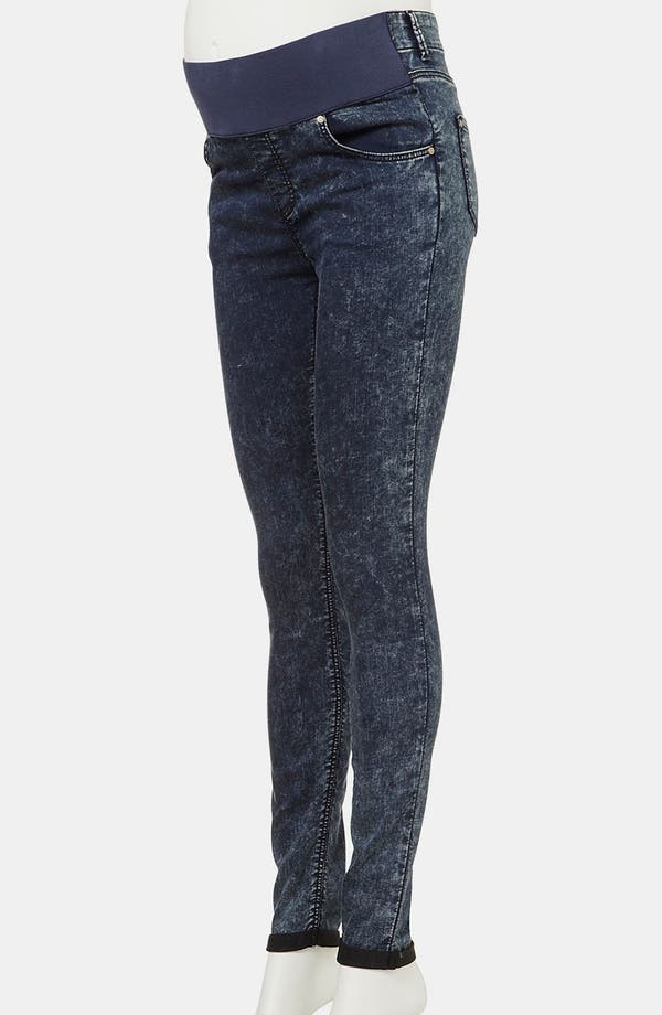 Alternate Image 2  - Topshop 'Leigh' Maternity Acid Wash Skinny Jeans