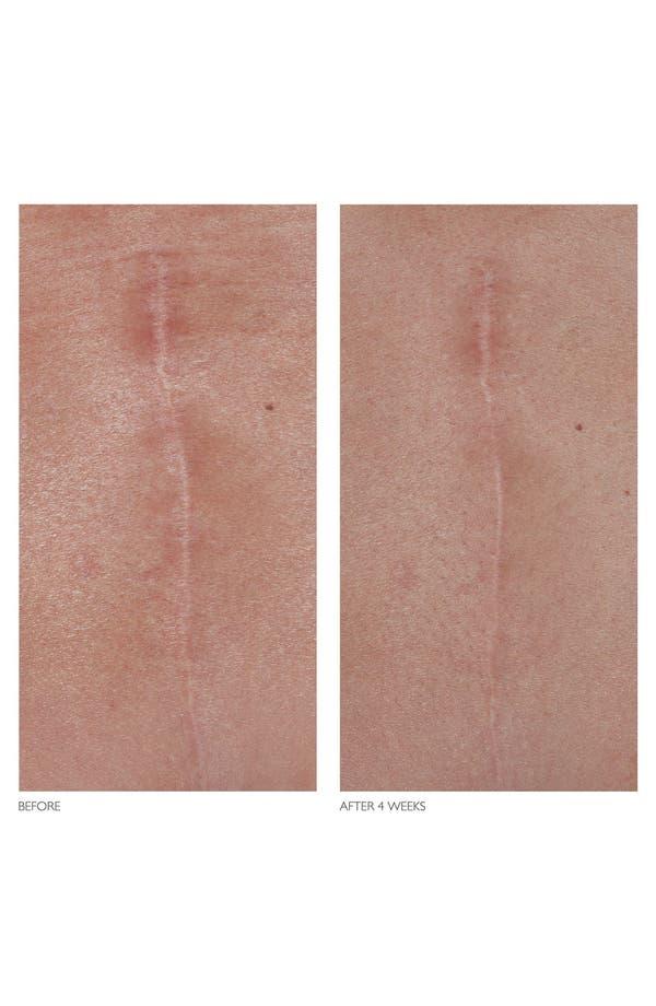 Alternate Image 4  - Kate Somerville® 'D-Scar' Scar Diminishing Serum