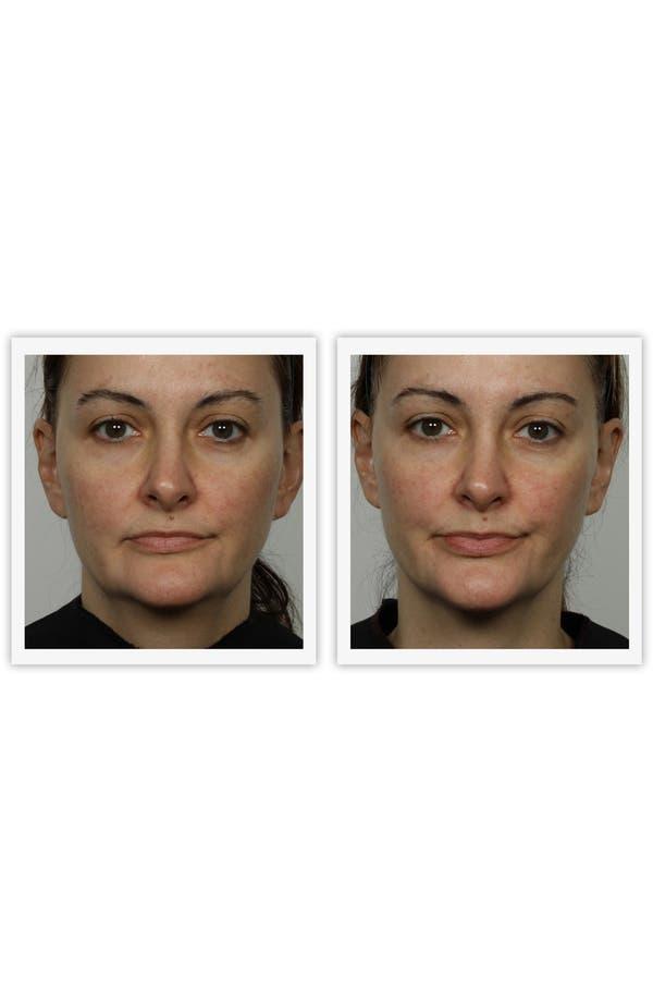 Alternate Image 4  - NuFACE® 'Trinity' Facial Toning Device