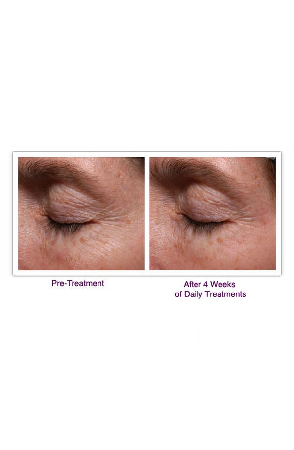 Alternate Image 5  - PaloVia® Skin Renewing Laser®