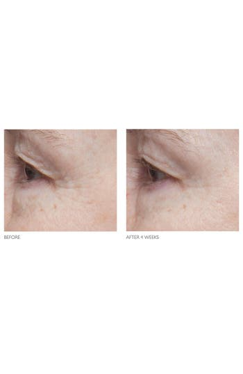 Alternate Image 5  - Kate Somerville® 'Age Arrest' Wrinkle Reducing Cream