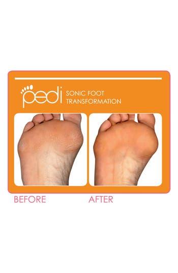 Alternate Image 2  - CLARISONIC 'Pedi' Sonic Foot Transformation ($310 Value)