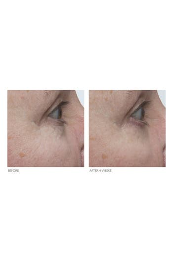 Alternate Image 4  - Kate Somerville® +Retinol Firming Eye Cream
