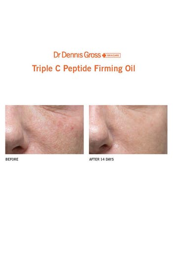 Alternate Image 3  - Dr. Dennis Gross Skincare Triple C Peptide Firming Oil