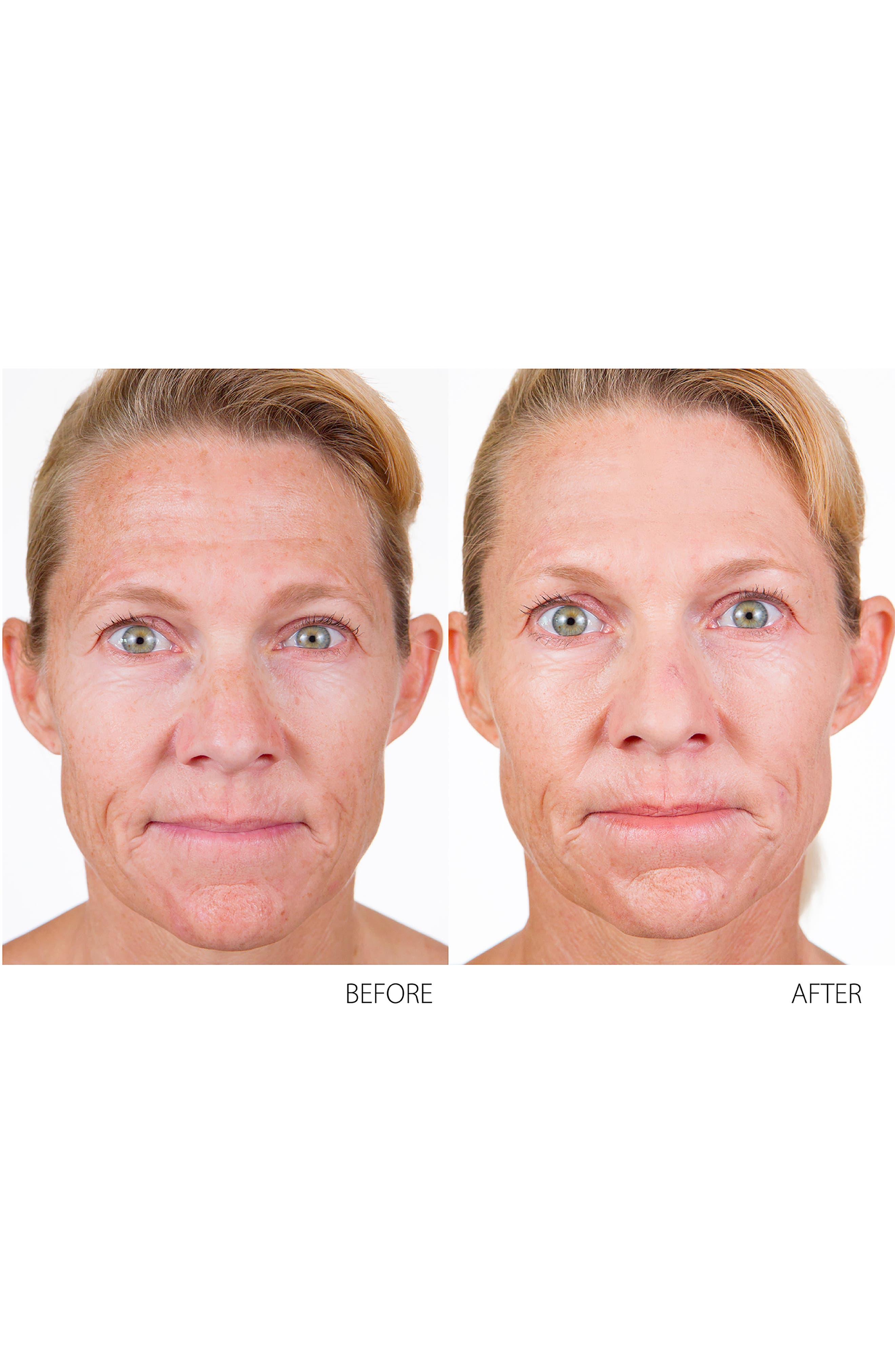 Kinetic Skin Toning System,                             Alternate thumbnail 5, color,                             No Color