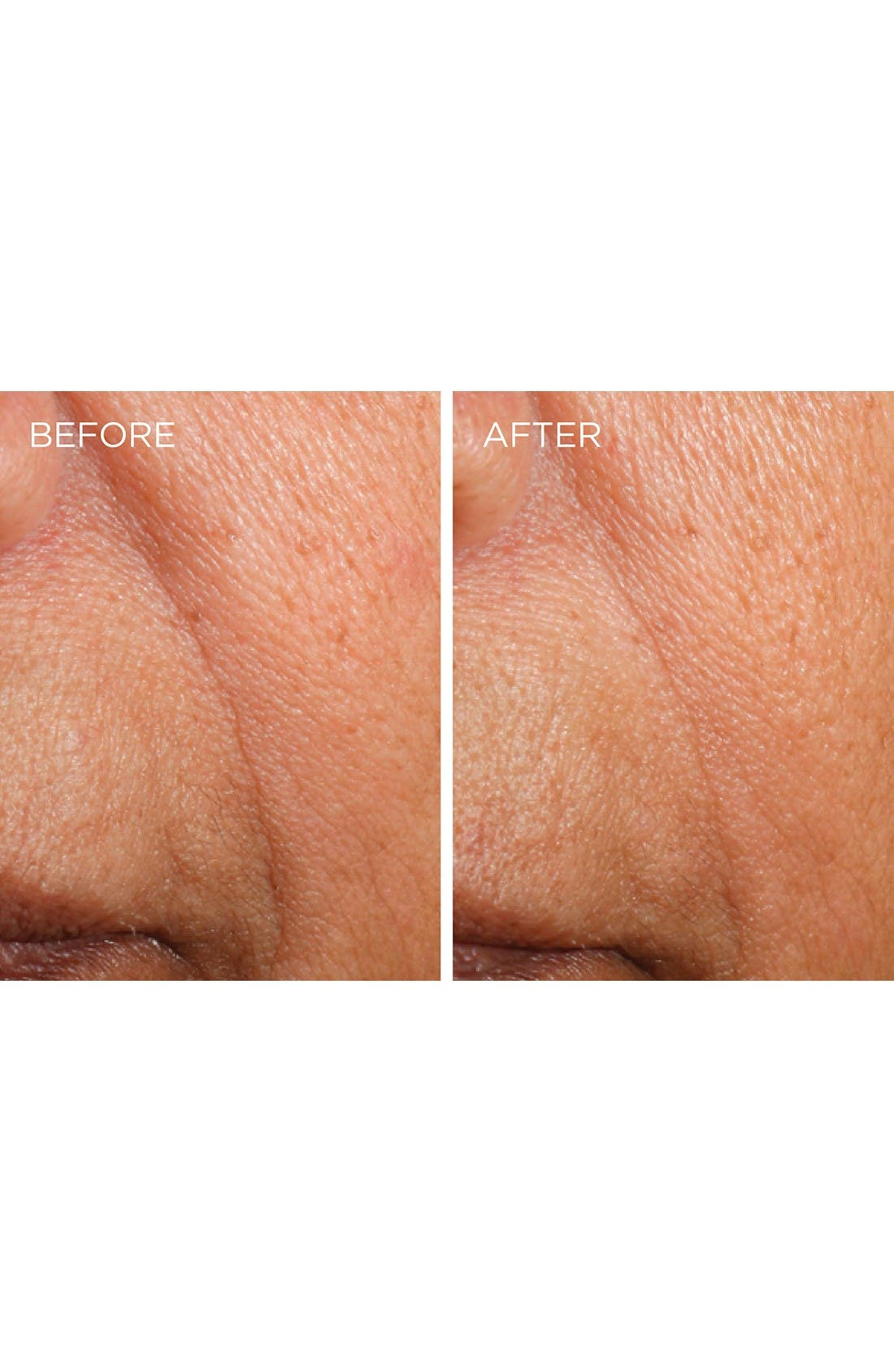 Alternate Image 3  - Dermarché® Labs 'FullFill' Hyaluronic Acid Topical Wrinkle Filler