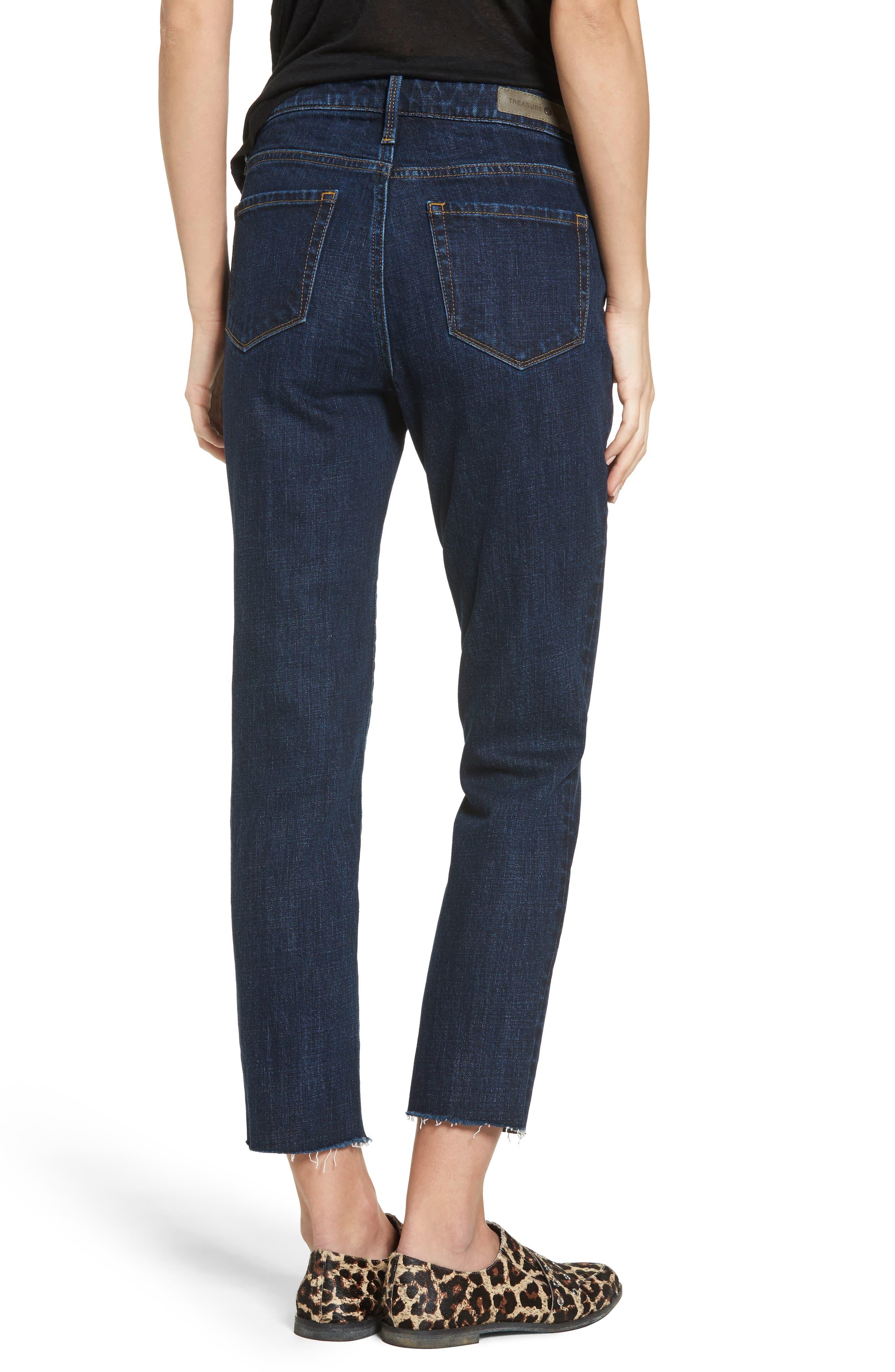 Alternate Image 2  - Treasure & Bond Bond Loose Fit Skinny Ankle Jeans (Granite Dark Vintage)