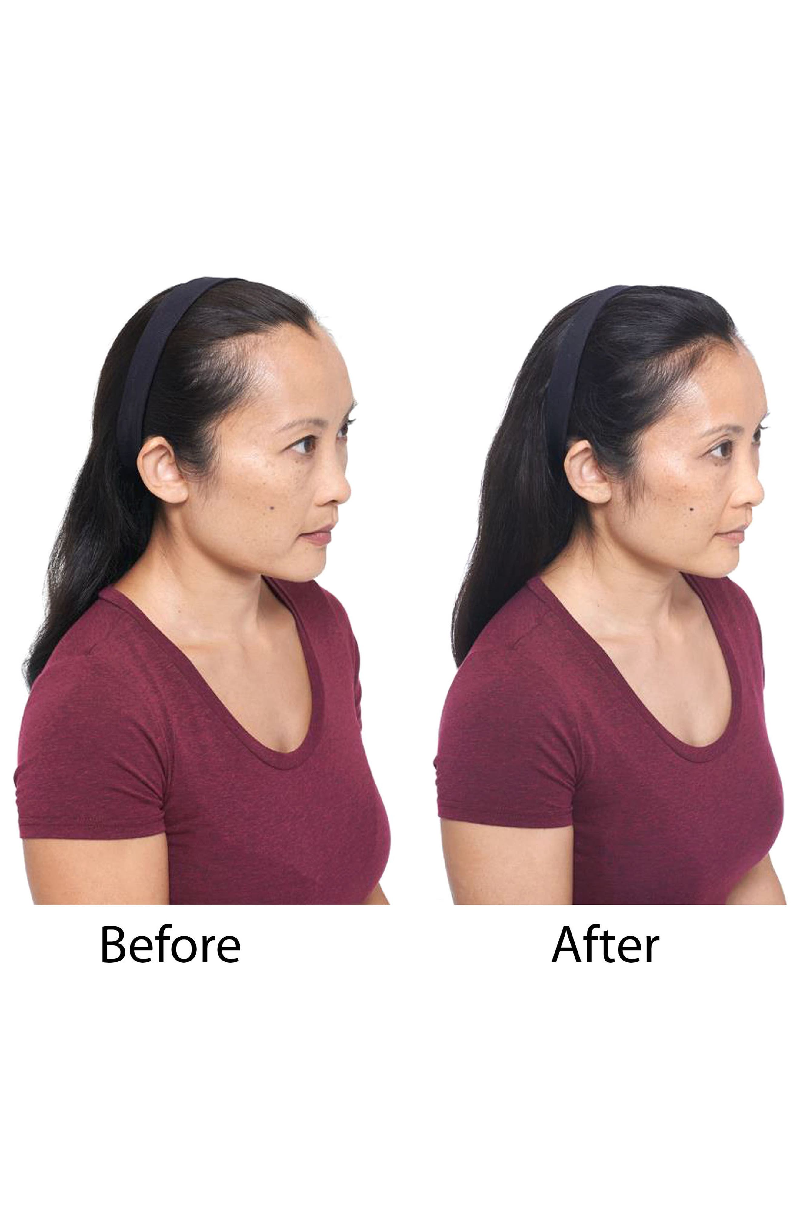 Hair Regrowth Treatment Spray for Women,                             Alternate thumbnail 5, color,                             No Color