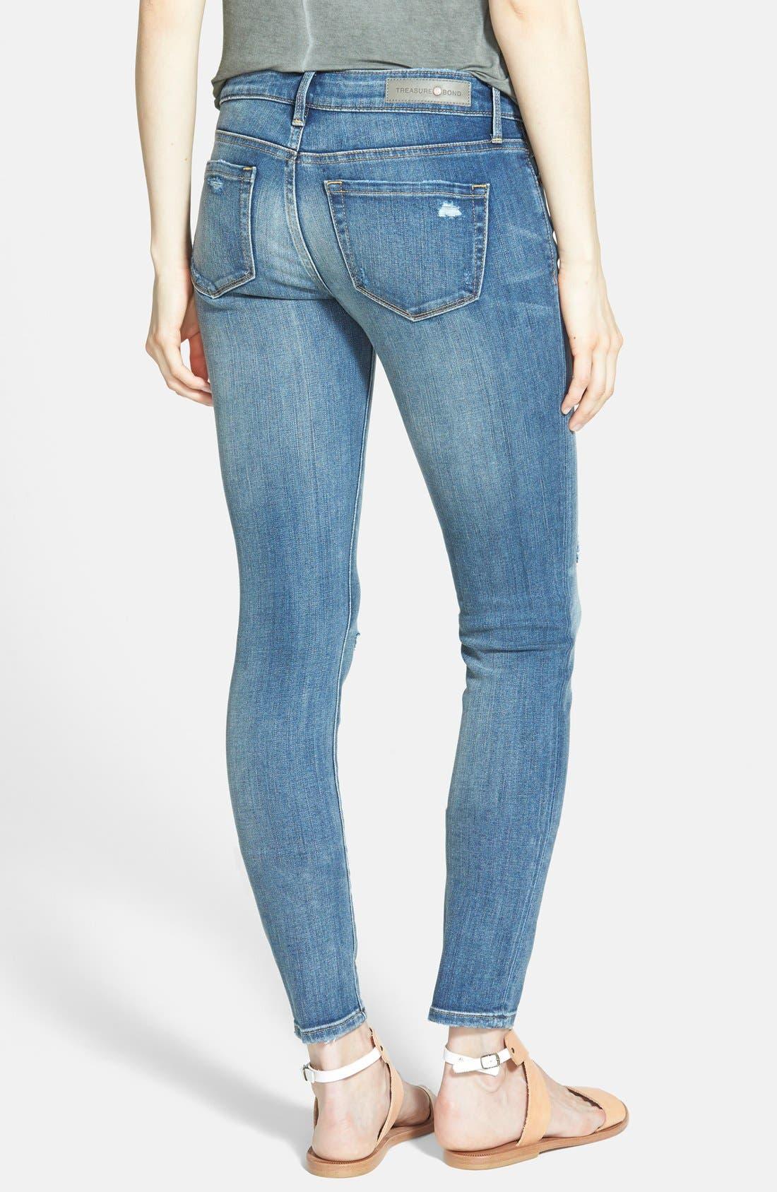 Alternate Image 2  - Treasure&Bond Skinny Jeans (Medium Wash)