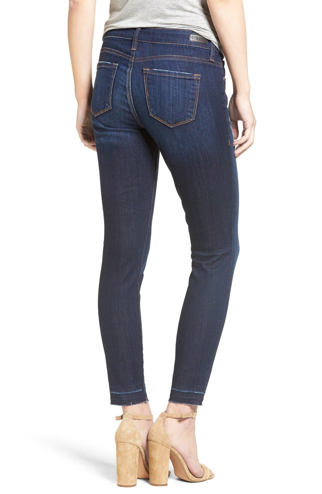 'Emma' Release Hem Skinny Jeans,                             Alternate thumbnail 2, color,                             East La Canada