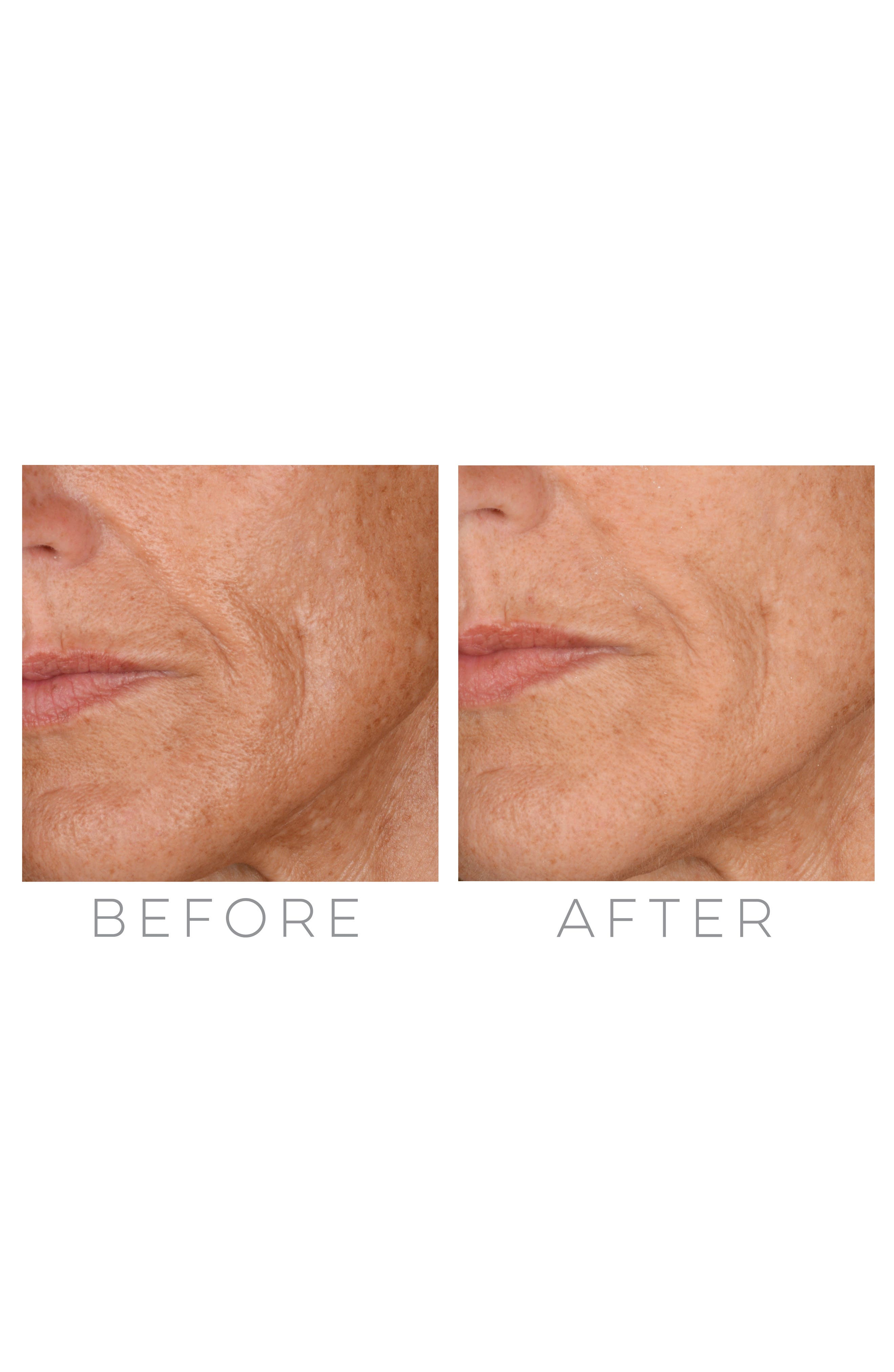 Alternate Image 7  - Beauty Bioscience® GloPRO® Microneedling Regeneration Tool