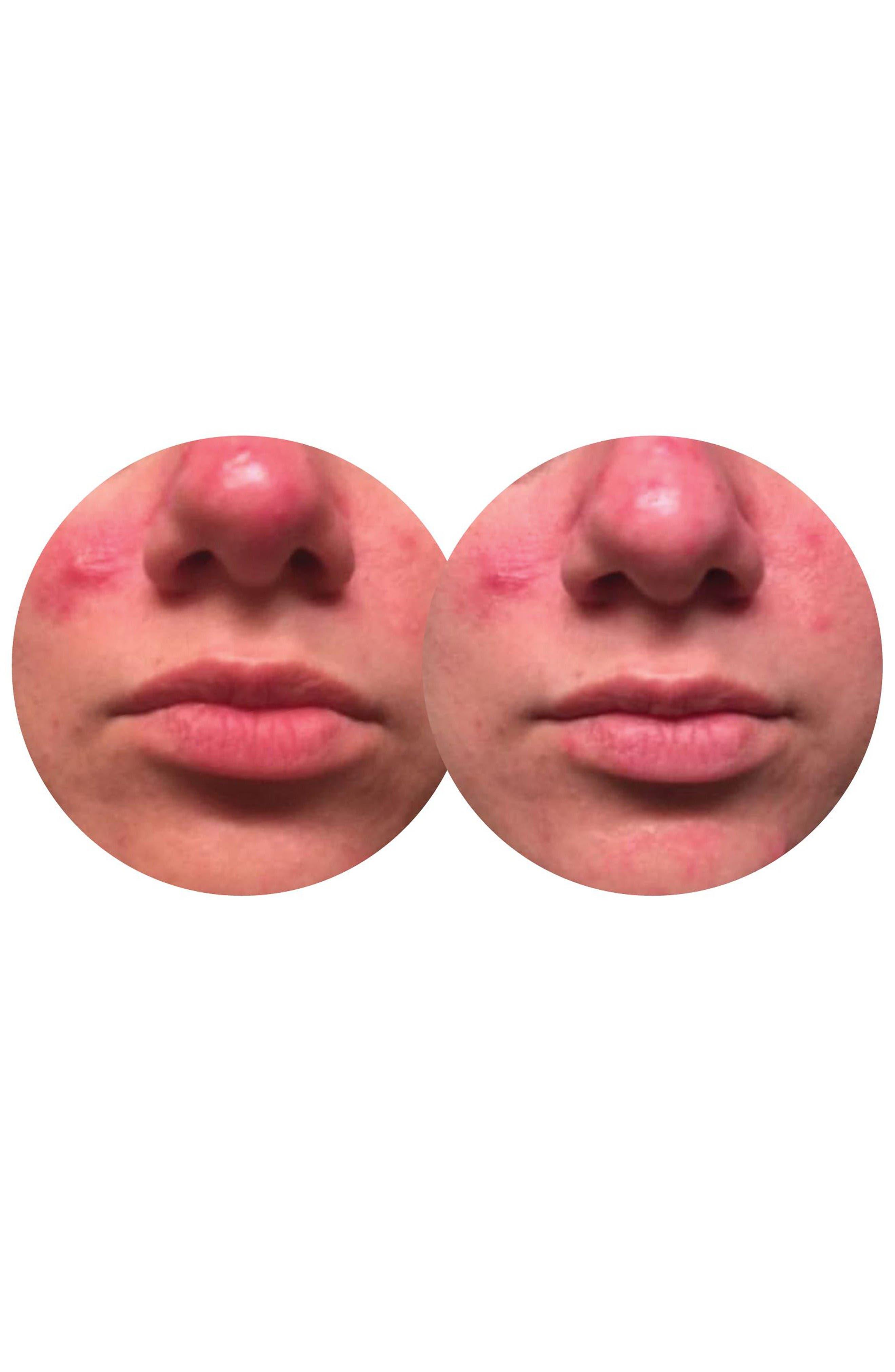 Alternate Image 4  - Dermovia Lace Your Face Healing Yogurt Compression Facial Mask