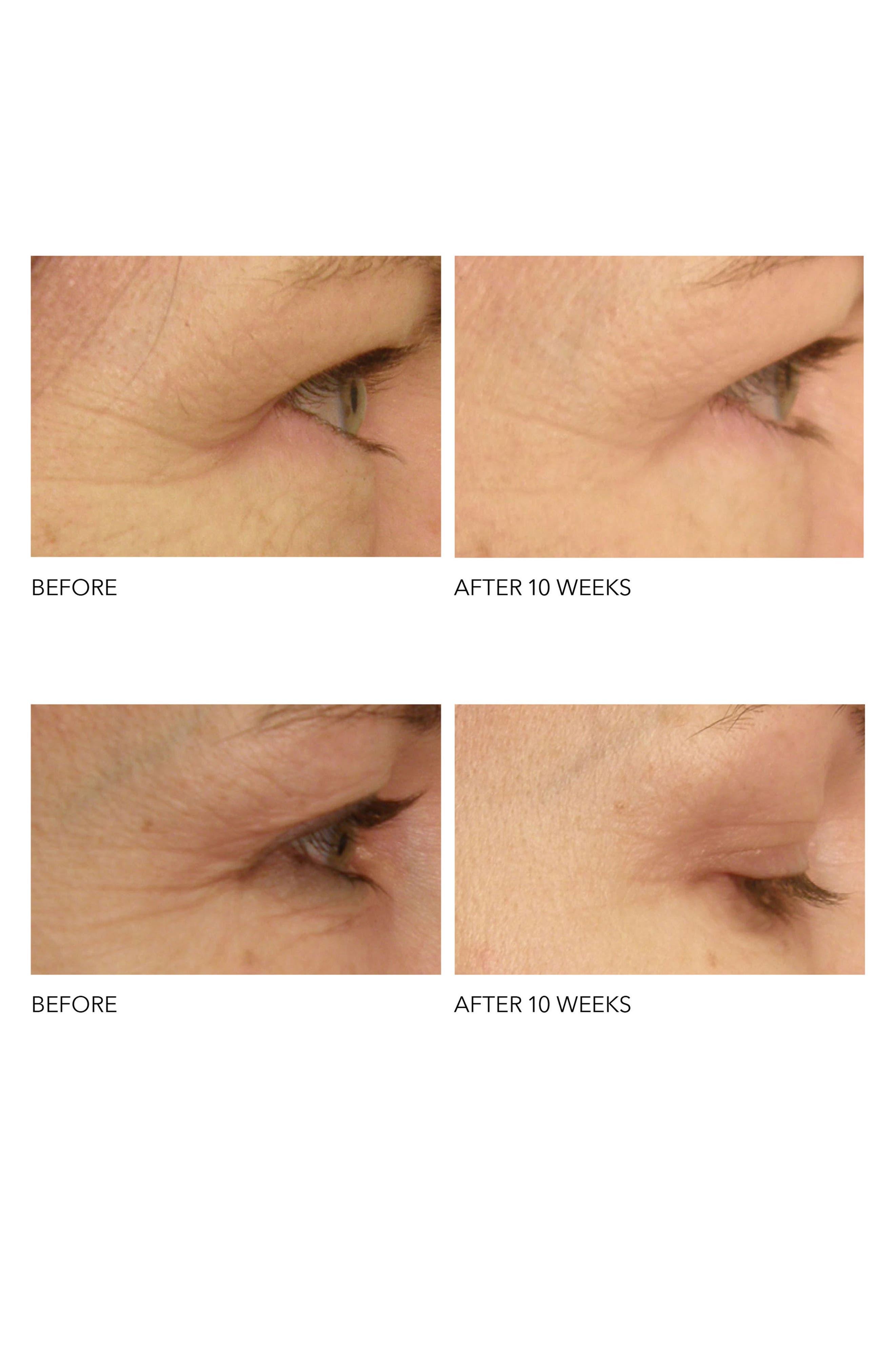 Alternate Image 2  - Dr. Dennis Gross Skincare DRx SpectraLite™ Eyecare Pro