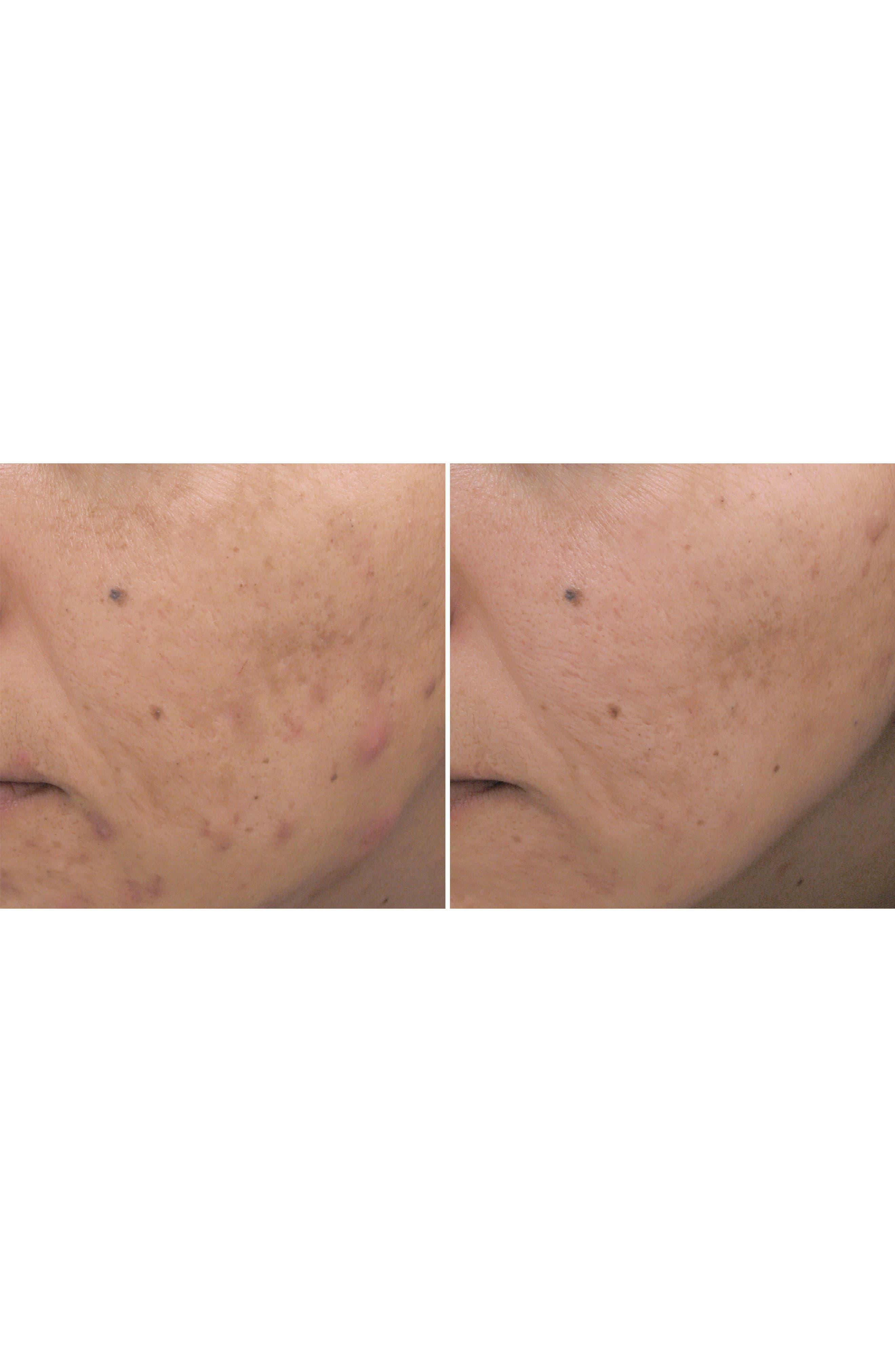 Acne Cream Spot Treatment,                             Alternate thumbnail 2, color,                             No Color