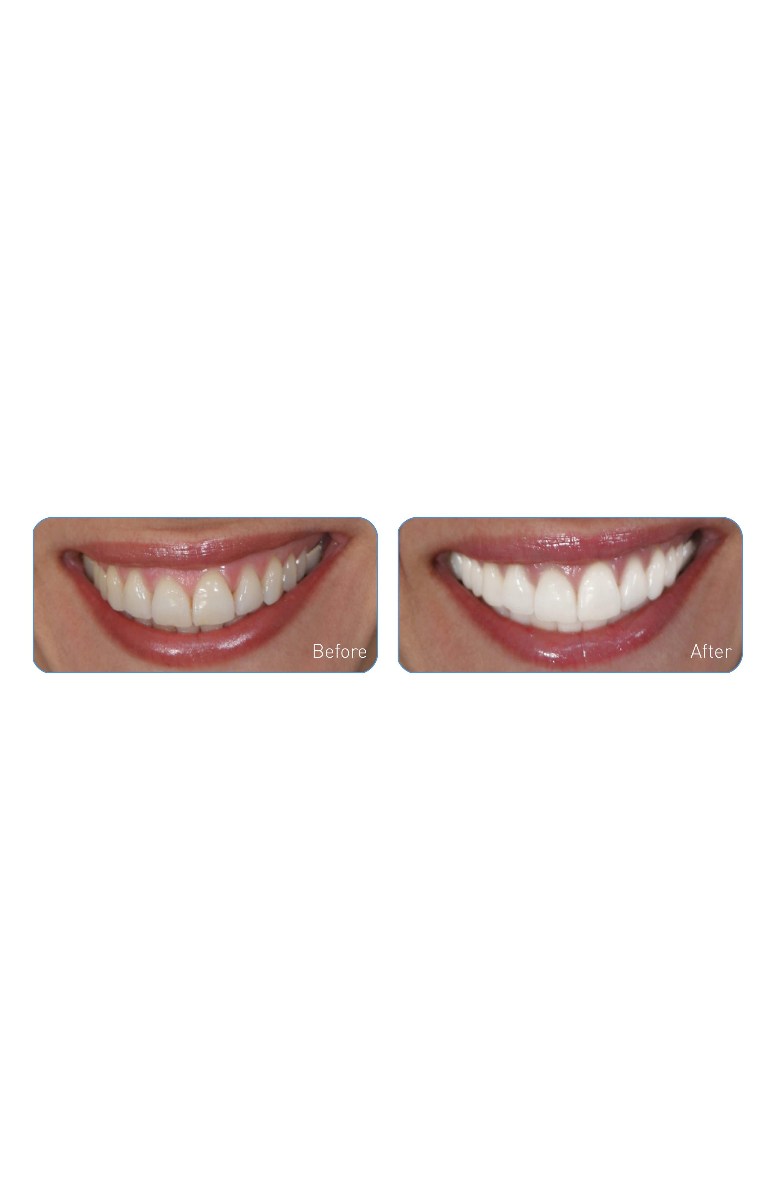 'Dental Pro On-the-Go - Sonic Blue' Teeth Whitening System,                             Alternate thumbnail 3, color,