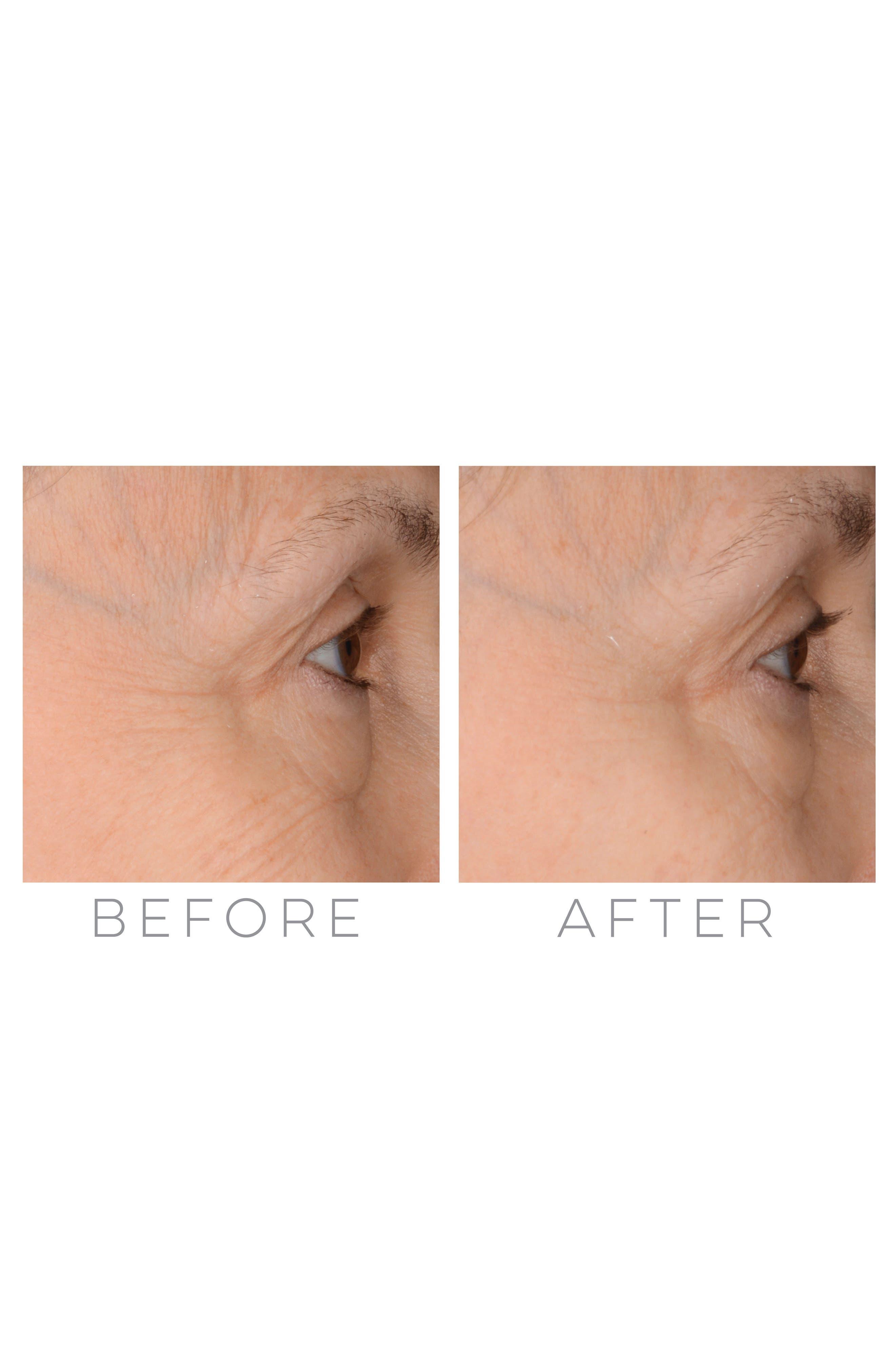 Alternate Image 3  - Beauty Bioscience® GloPRO® Rose Gold Microneedling Regeneration Tool & Eye MicroTip™ Set (Nordstrom Exclusive) ($329 Value)
