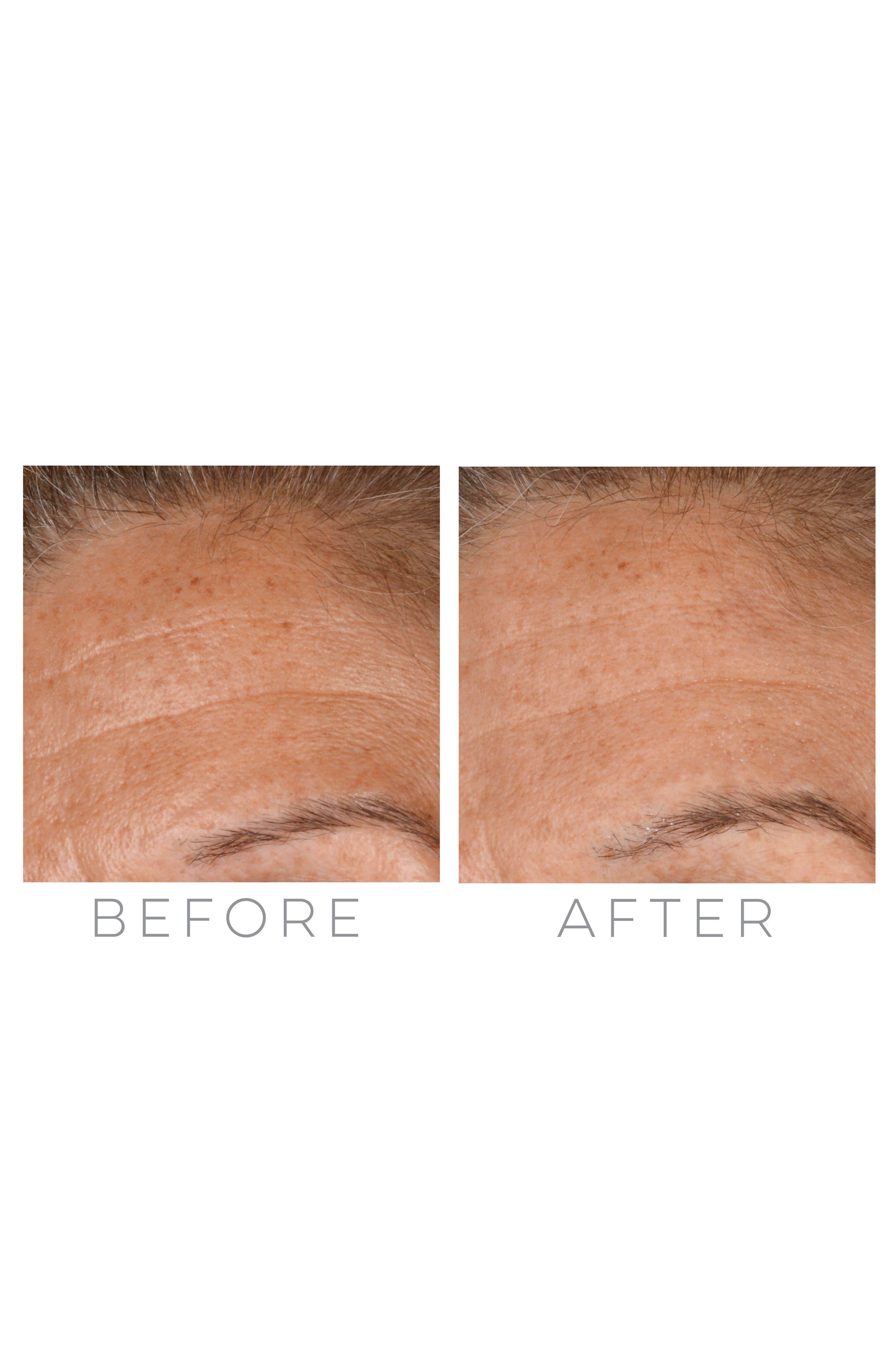 Alternate Image 4  - Beauty Bioscience® GloPRO® Rose Gold Microneedling Regeneration Tool & Eye MicroTip™ Set (Nordstrom Exclusive) ($329 Value)