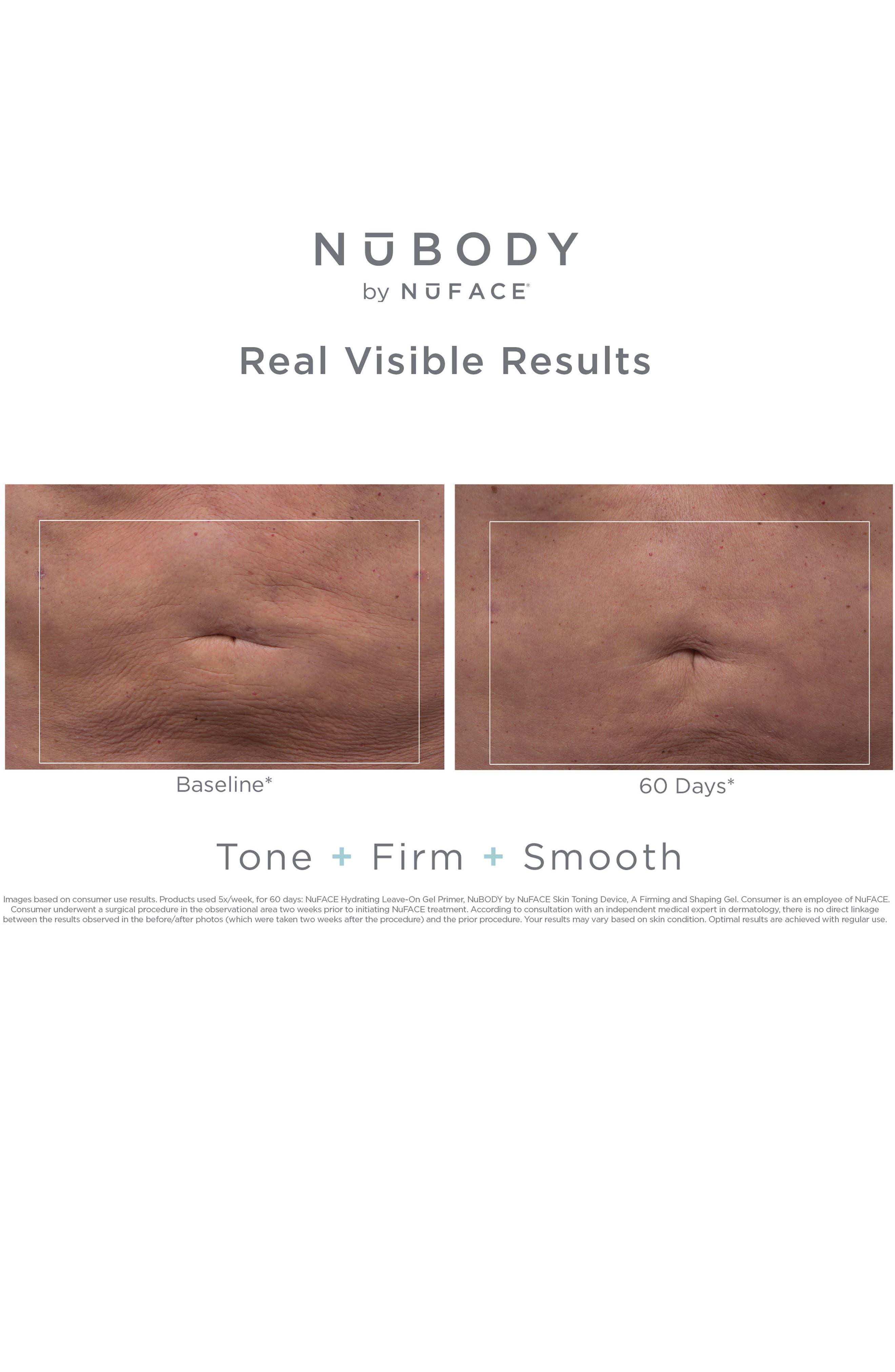 NuBODY Skin Toning Device,                             Alternate thumbnail 3, color,                             No Color