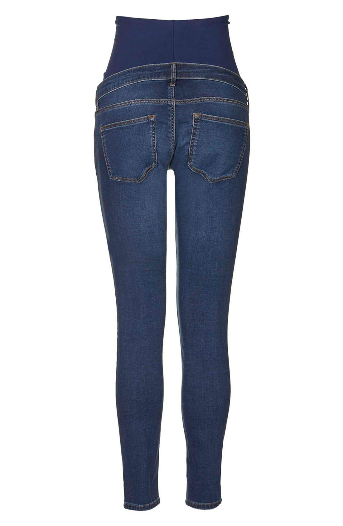 'Leigh' Skinny Maternity Jeans,                             Alternate thumbnail 2, color,                             Dark Denim