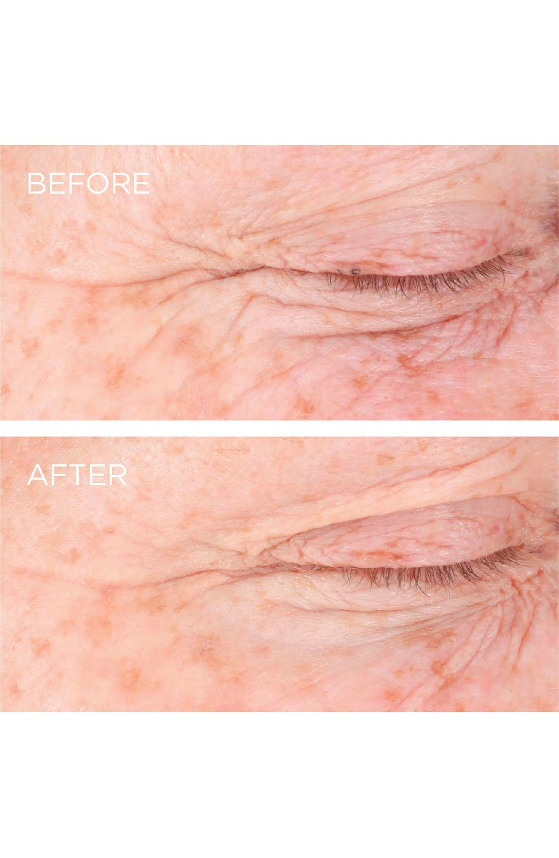 Alternate Image 5  - Dermarché® Labs 'FullFill' Hyaluronic Acid Topical Wrinkle Filler
