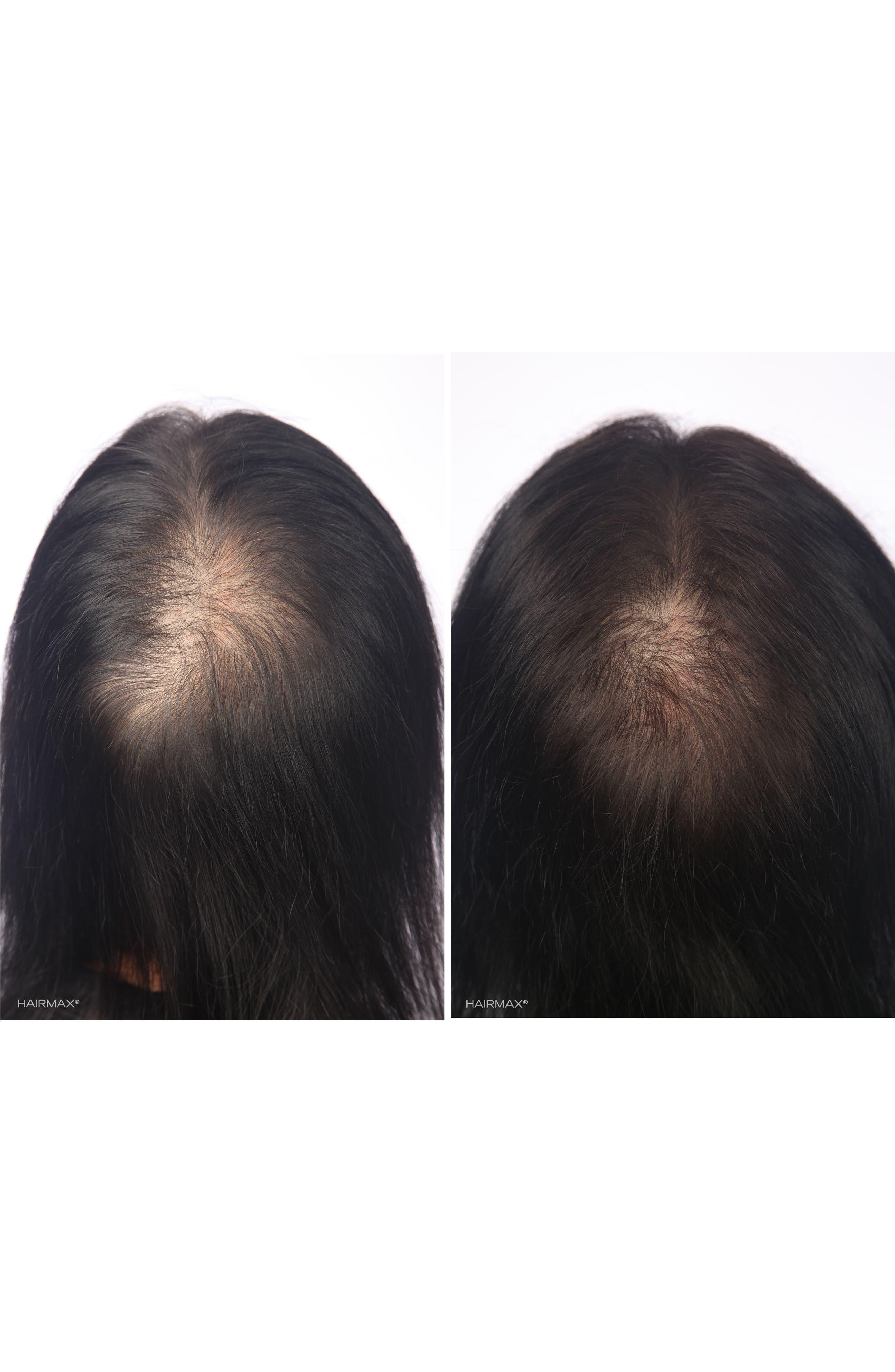 Alternate Image 4  - HAIRMAX® 'LaserBand 82' Laser Hair Regrowth System
