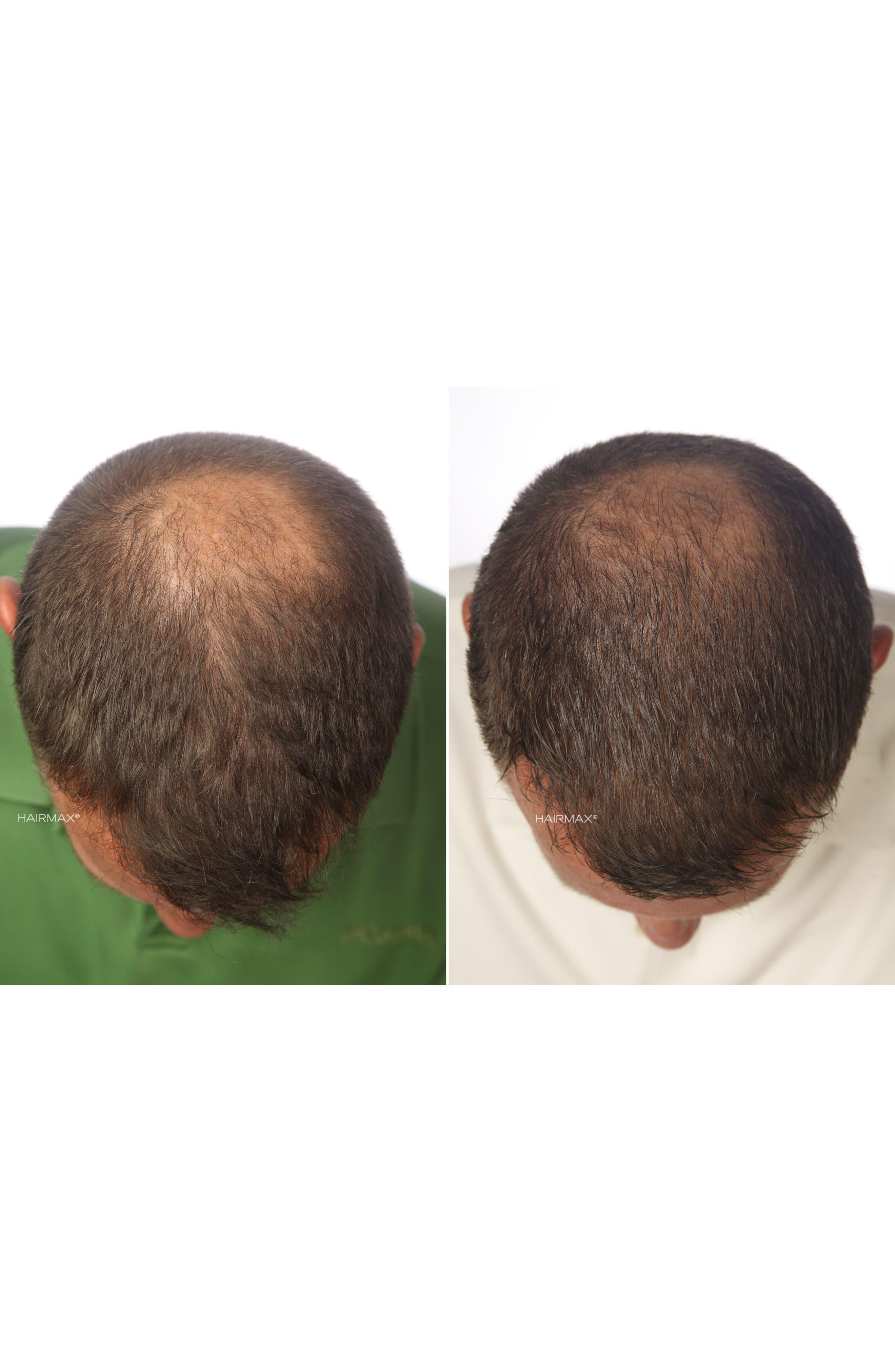 Alternate Image 5  - HAIRMAX® 'LaserBand 82' Laser Hair Regrowth System