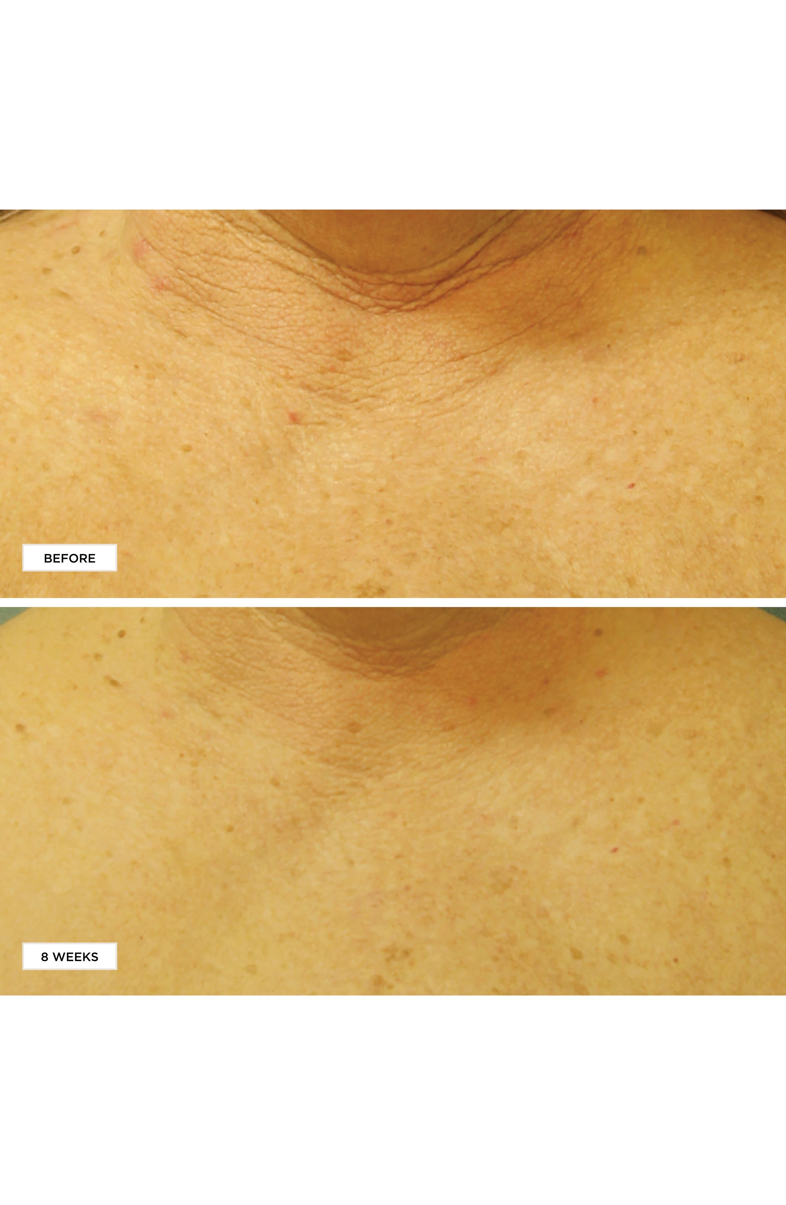 Neuropeptide Restorative Neck & Chest Therapy SPF 25,                             Alternate thumbnail 2, color,                             No Color