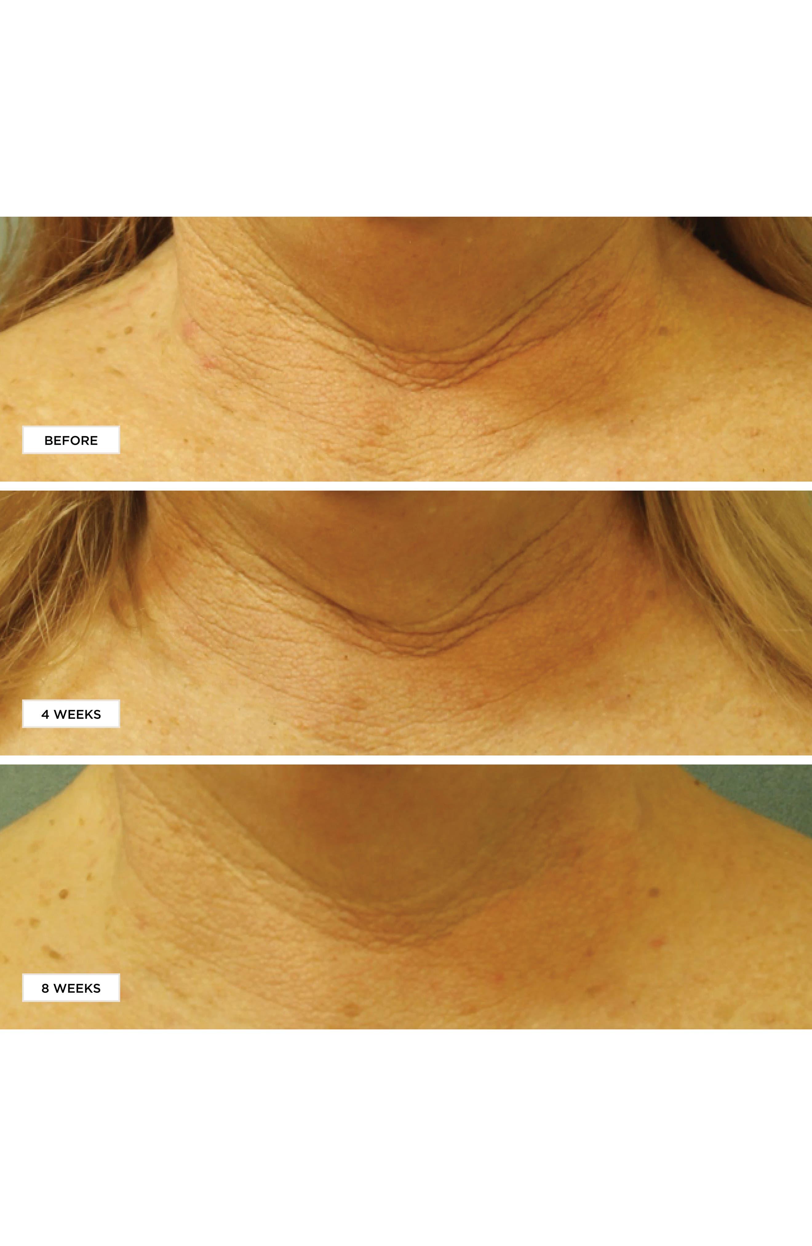 Neuropeptide Restorative Neck & Chest Therapy SPF 25,                             Alternate thumbnail 3, color,                             No Color