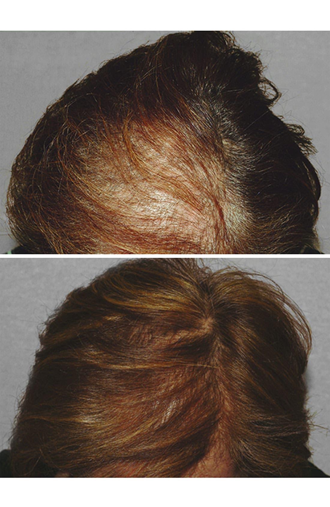 Alternate Image 3  - HAIRMAX® 'LaserComb Professional' Hair Growth Device