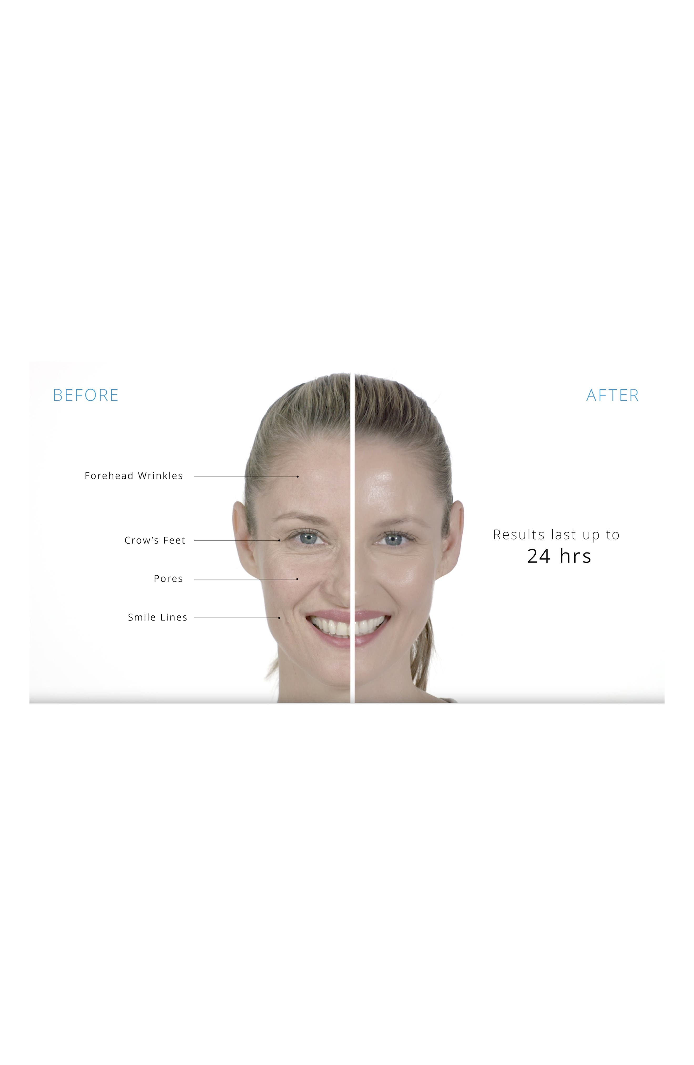 Dermarché Labs 'Roloxin<sup>®</sup> Lift' Instant Wrinkle Smoothing Mask,                             Alternate thumbnail 2, color,                             No Color