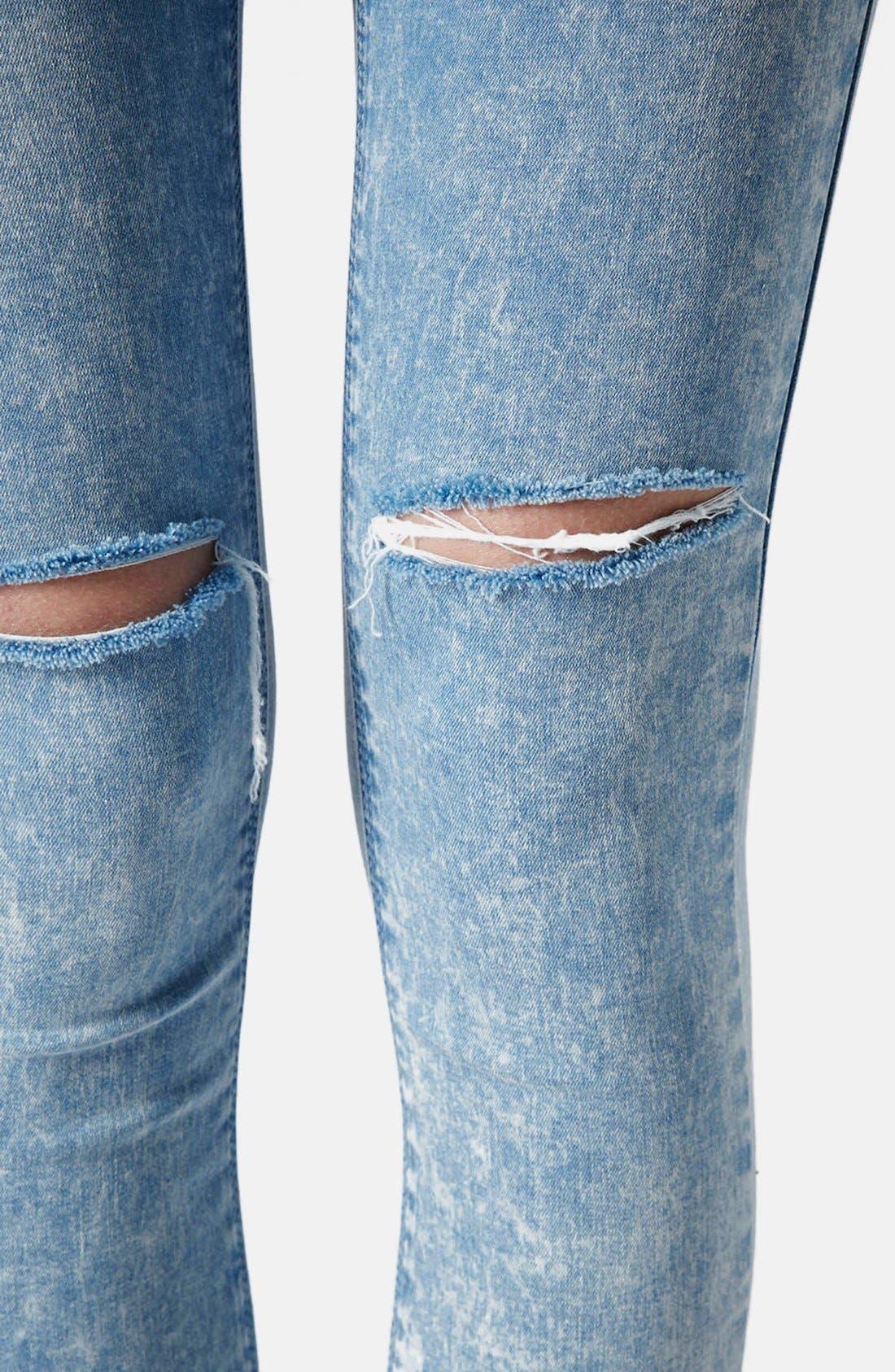 Alternate Image 4  - Topshop Moto 'Leigh' Acid Wash Ripped Skinny Jeans (Light Blue) (Regular & Short)