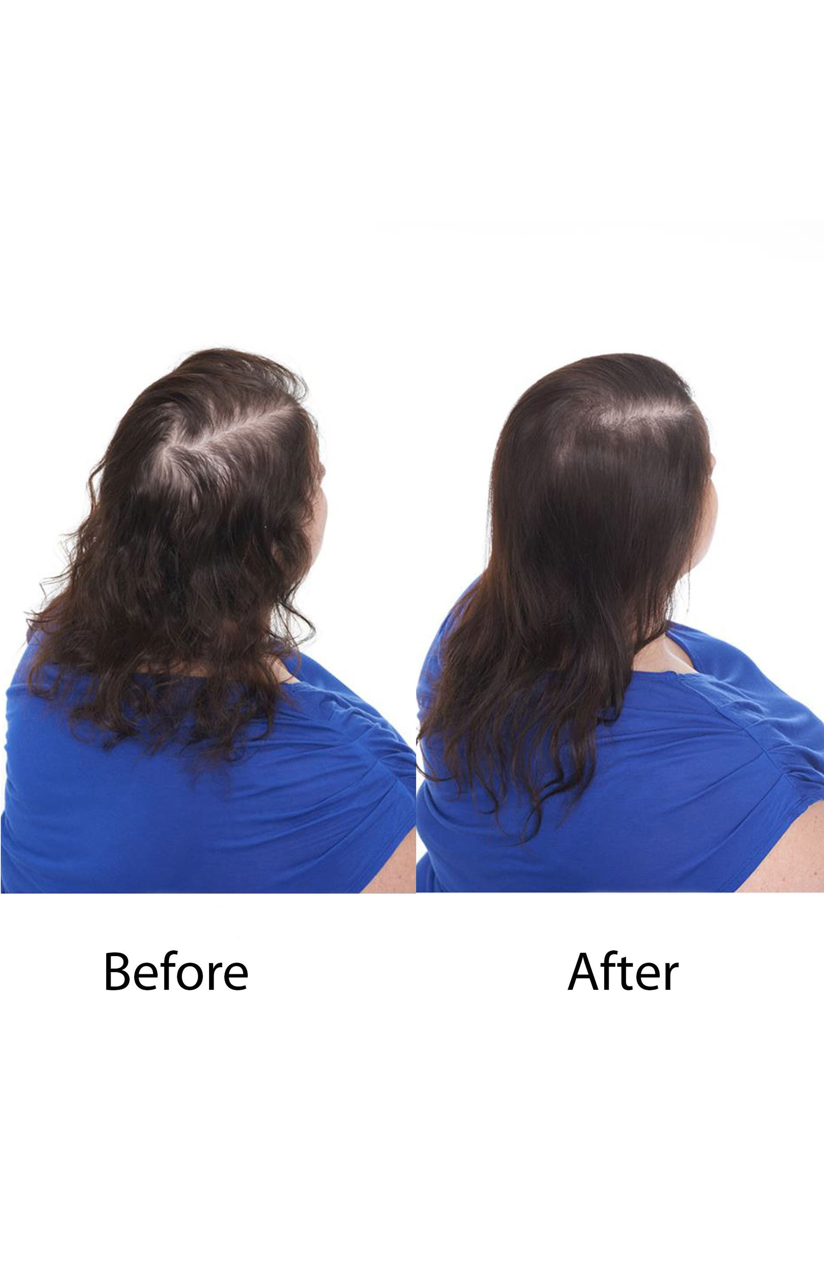 Hair Regrowth Treatment Spray for Women,                             Alternate thumbnail 4, color,                             No Color