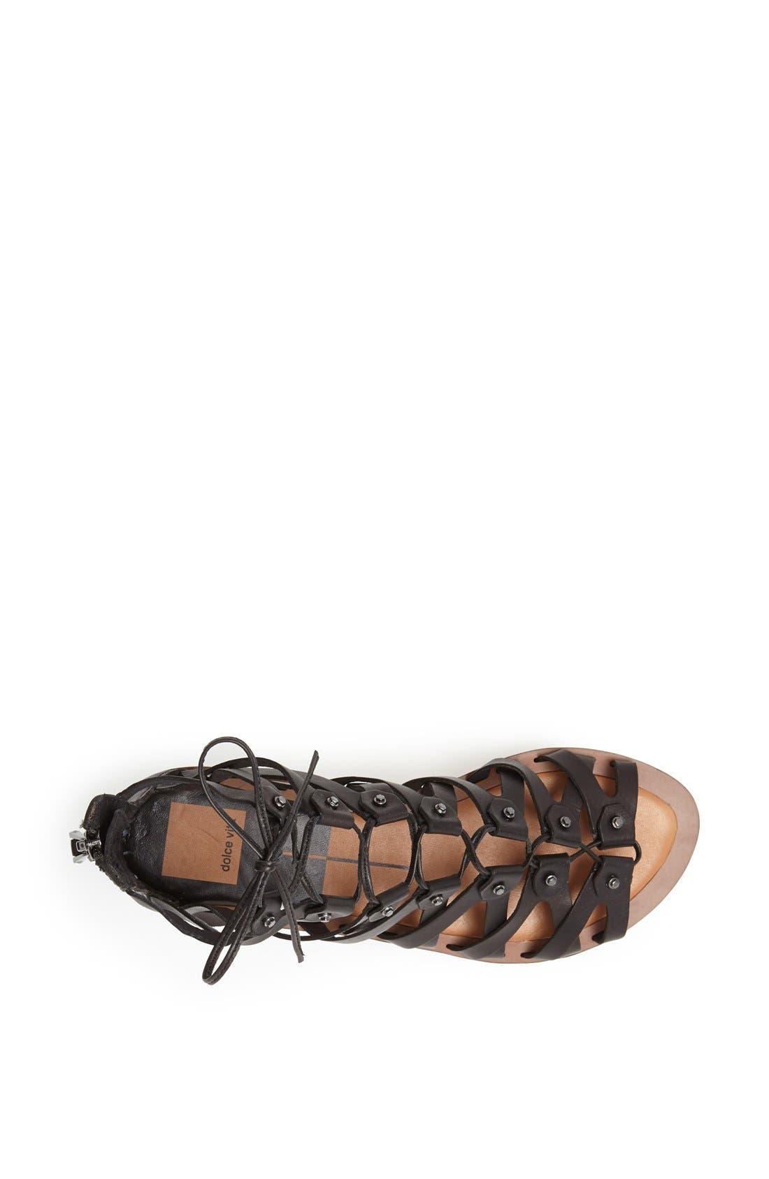 Alternate Image 3  - Dolce Vita 'Fray' Sandal