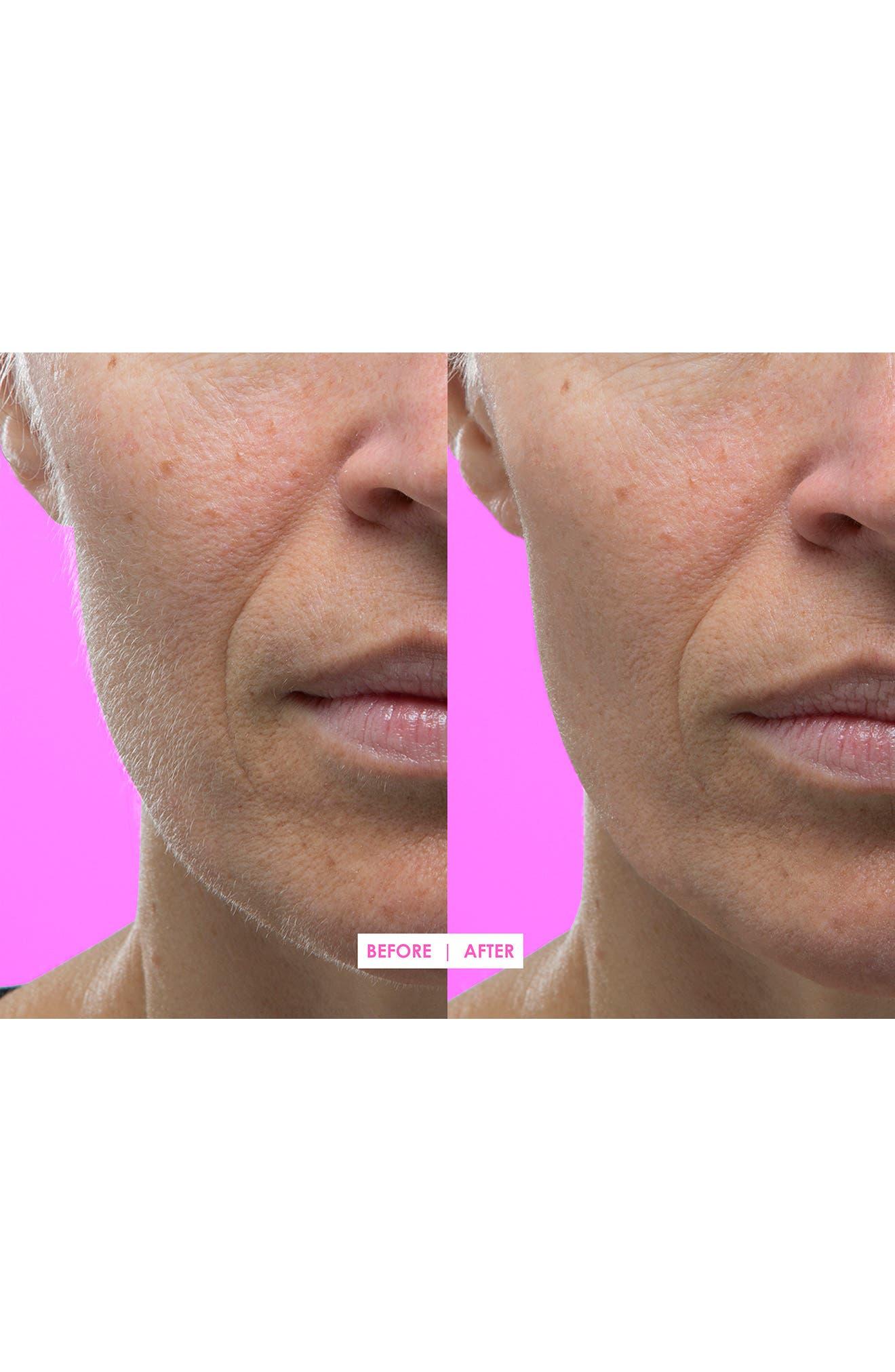 Hot Pink Facial Exfoliating Device,                             Alternate thumbnail 7, color,                             No Color